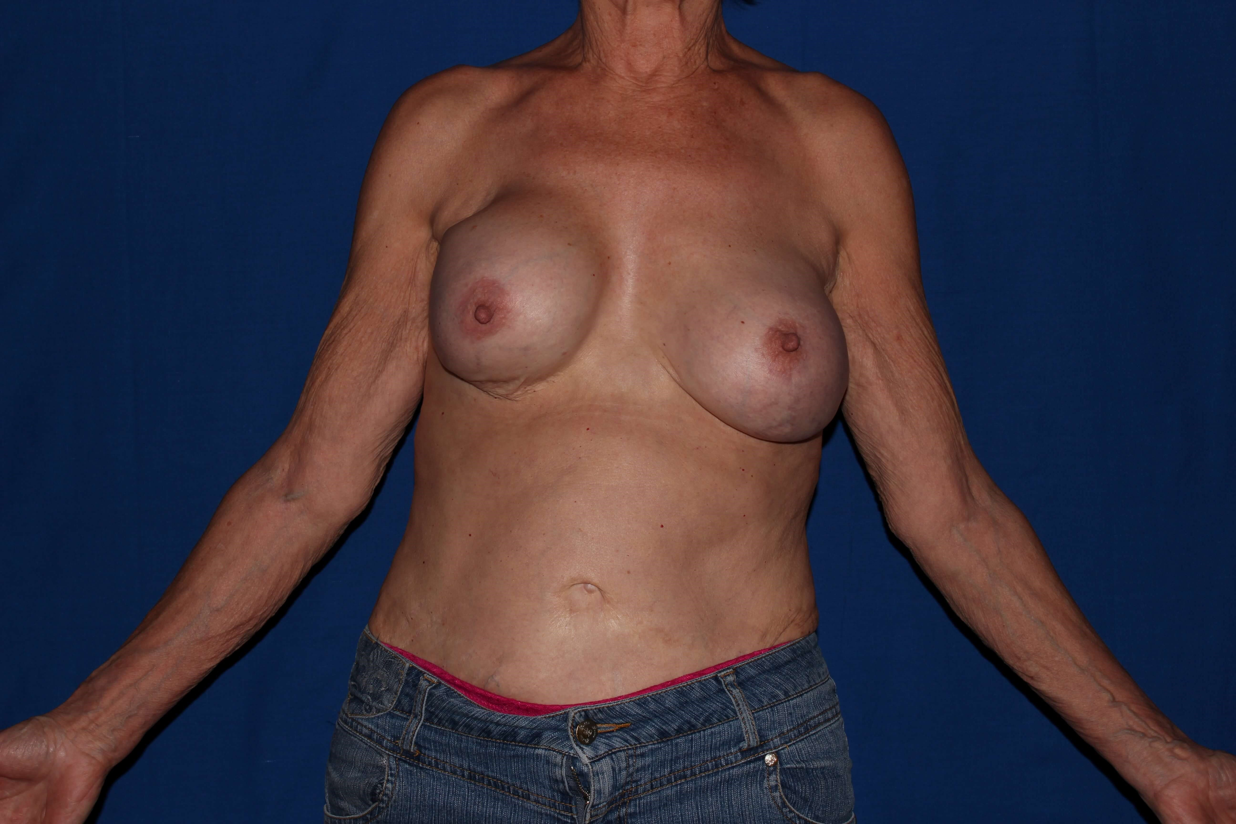 Breast Augmentation Before - Scottsdale, AZ Breast Revision