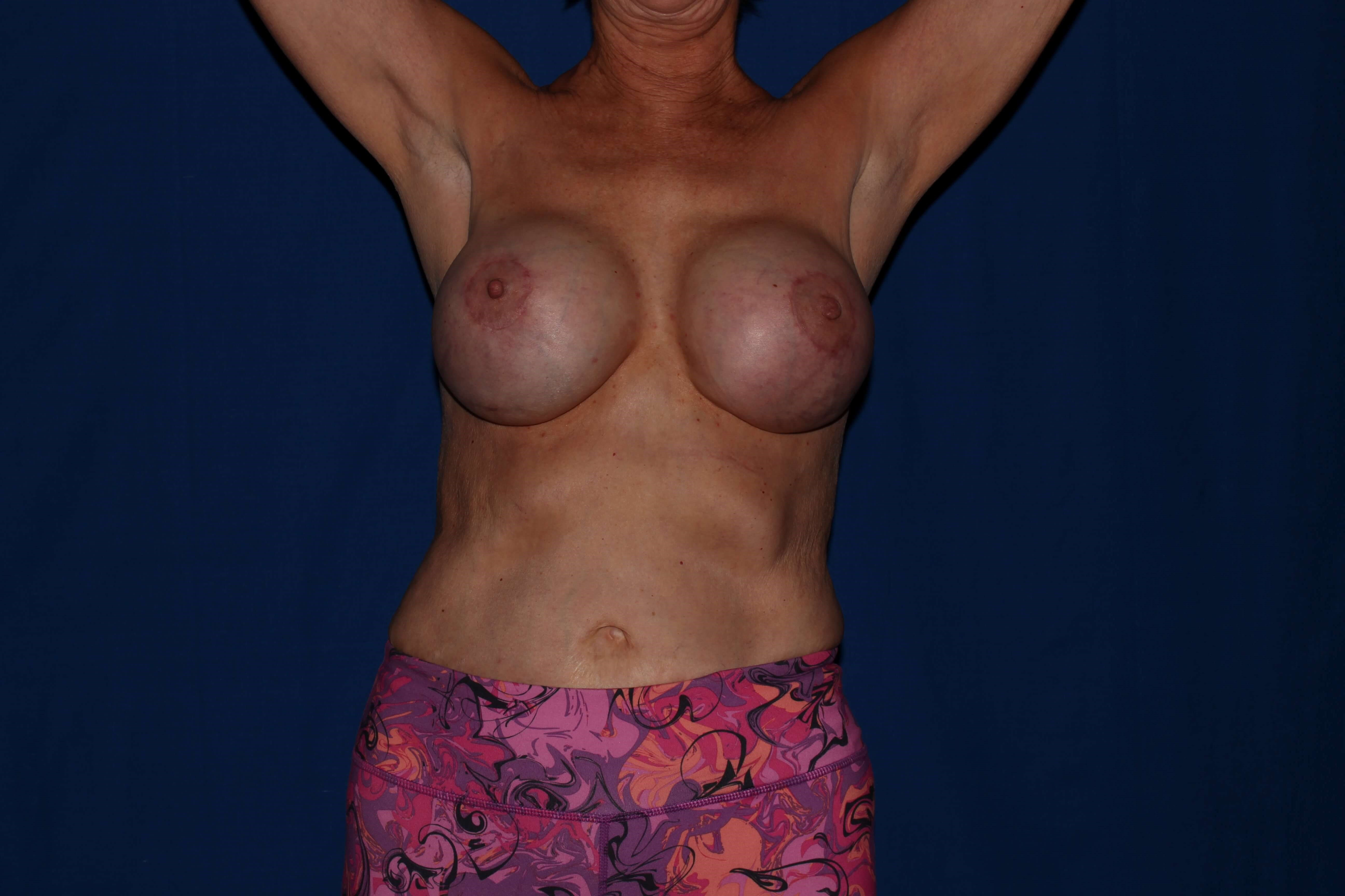 Breast Augmentation after - Scottsdale Breast Capsulectomy