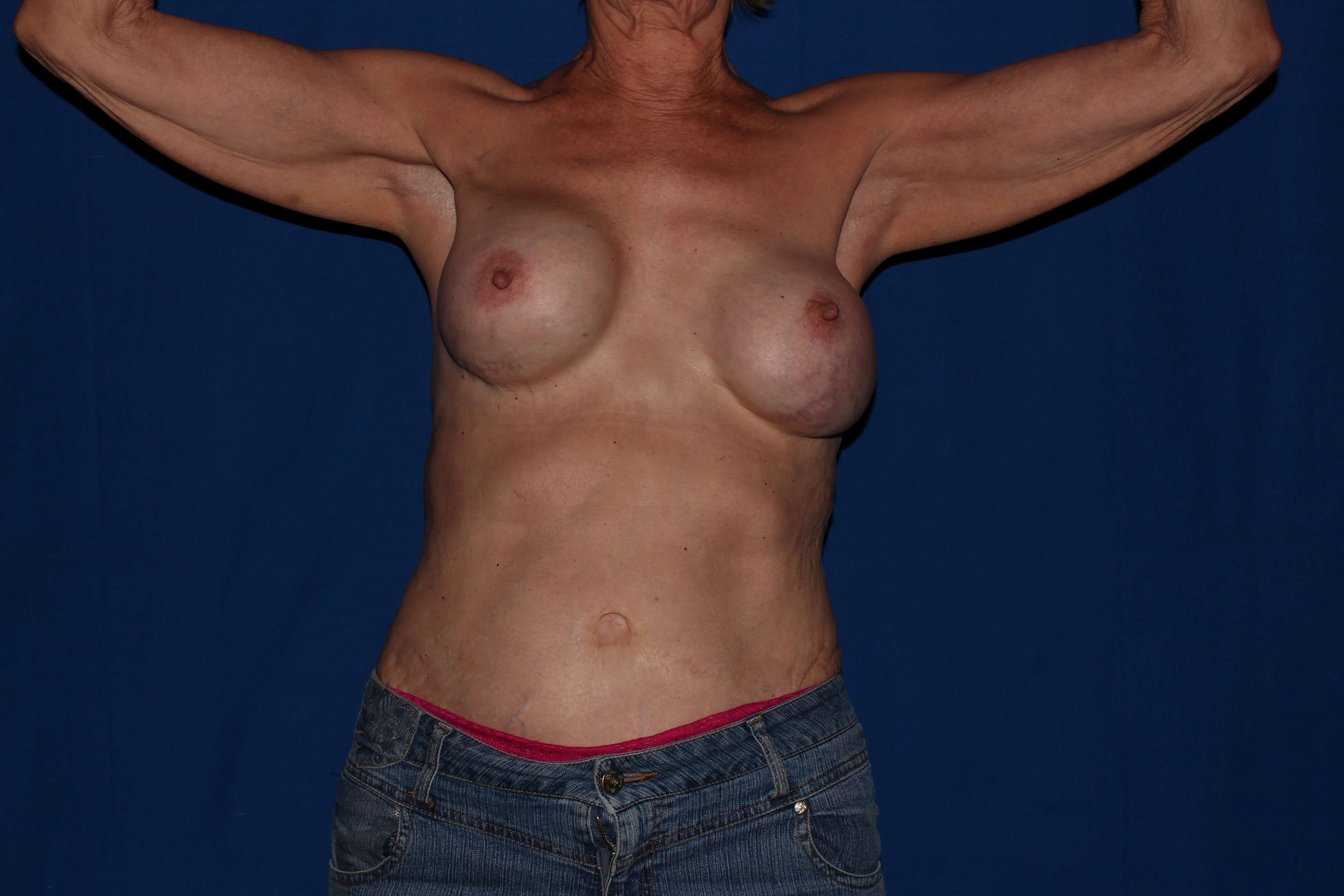 Breast Augmentation Before - Scottsdale Breast Capsulectomy