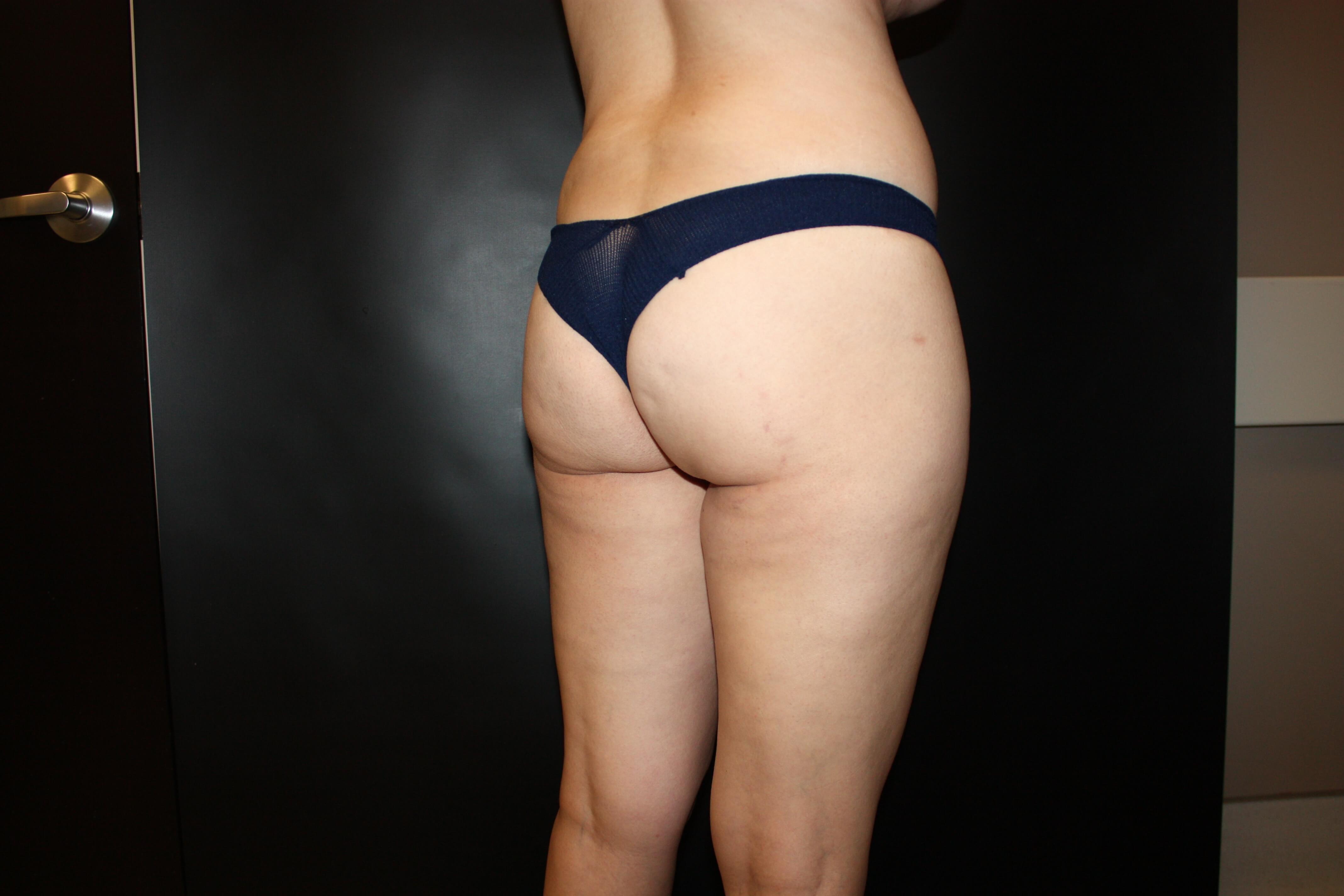 Butt Lift Before - Scottsdale Liposuction 360 BBL