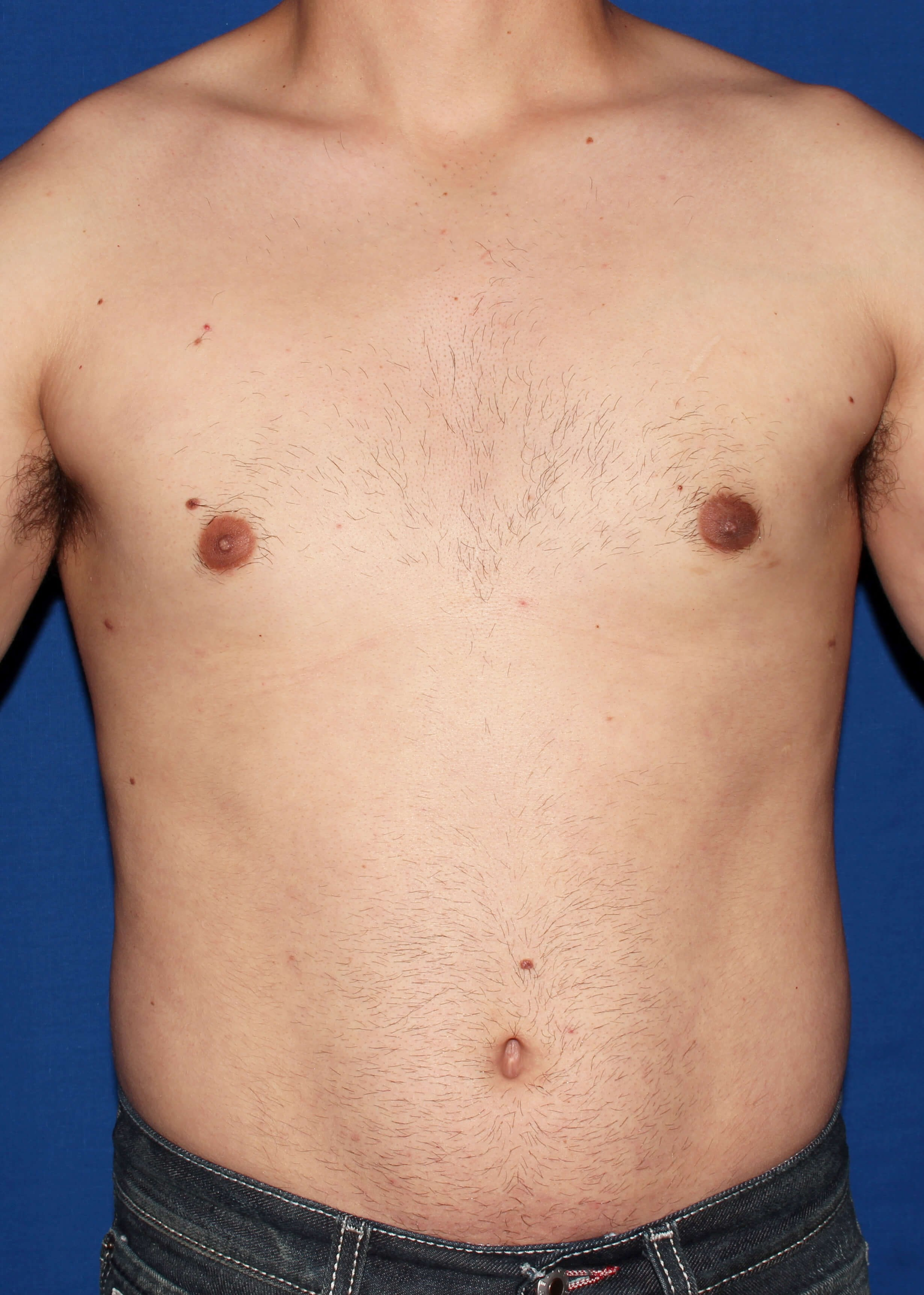 Liposuction Before & After Photo Gallery | Washington DC