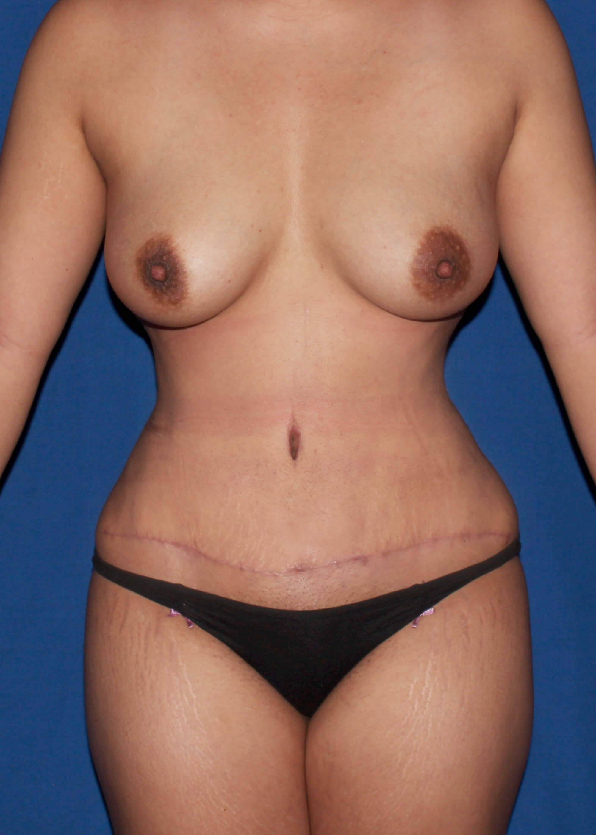 After Liposuction - scottsdale mommy makeover AZ