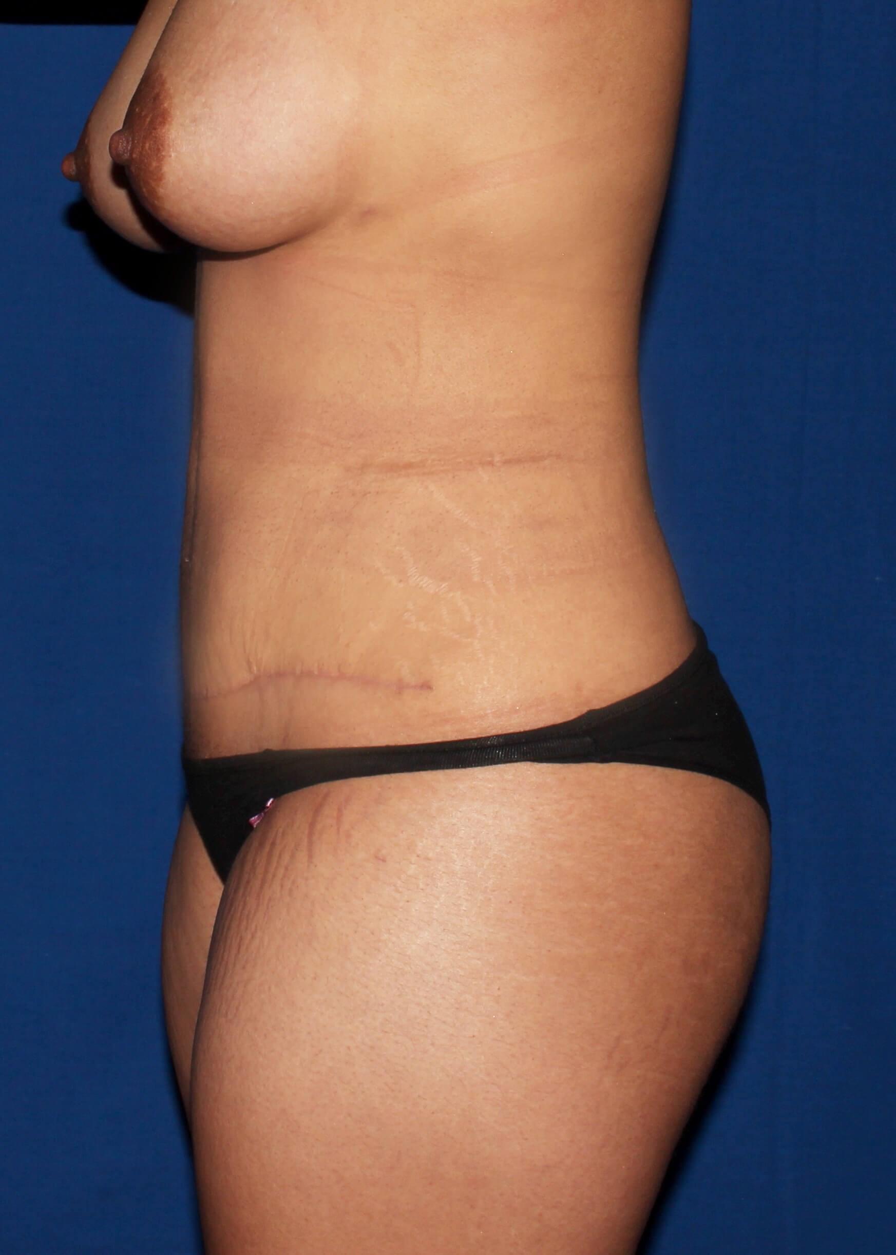 After Liposuction - Scottdale lipoTummytuck