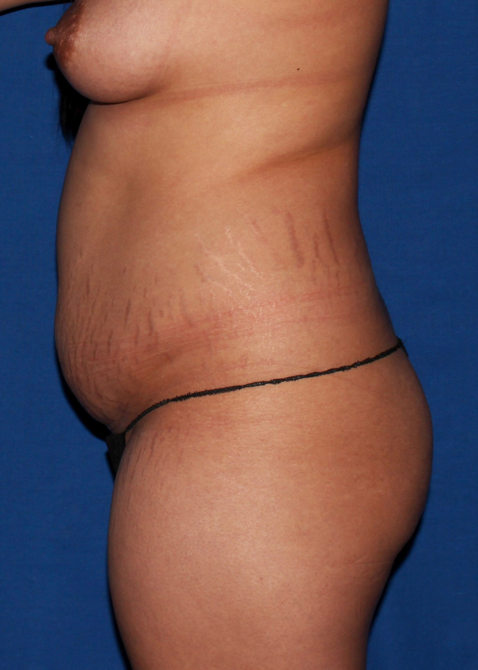 Before Liposuction - Scottdale lipoTummytuck