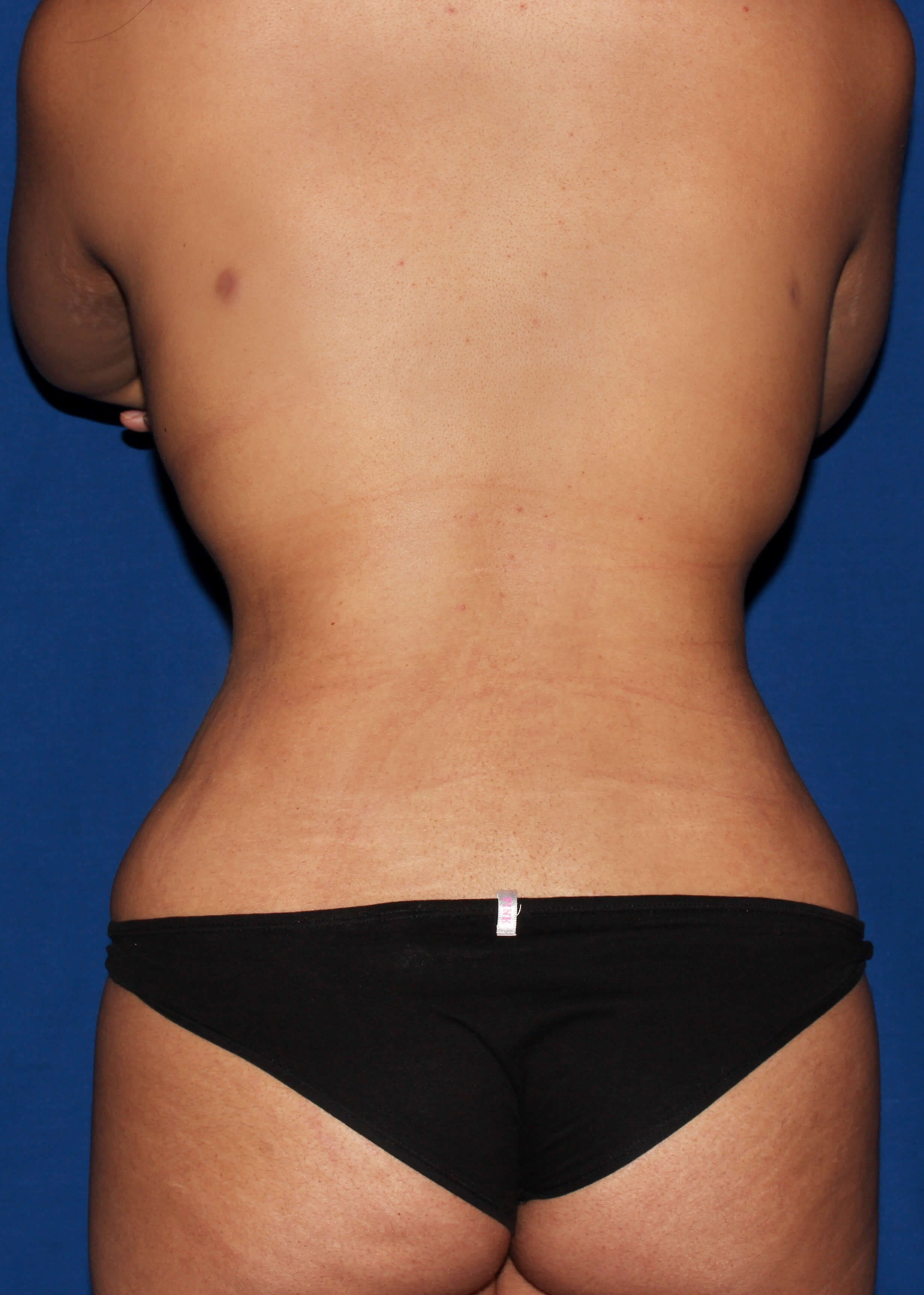 After Liposuction - scottsdale snatchted waist AZ