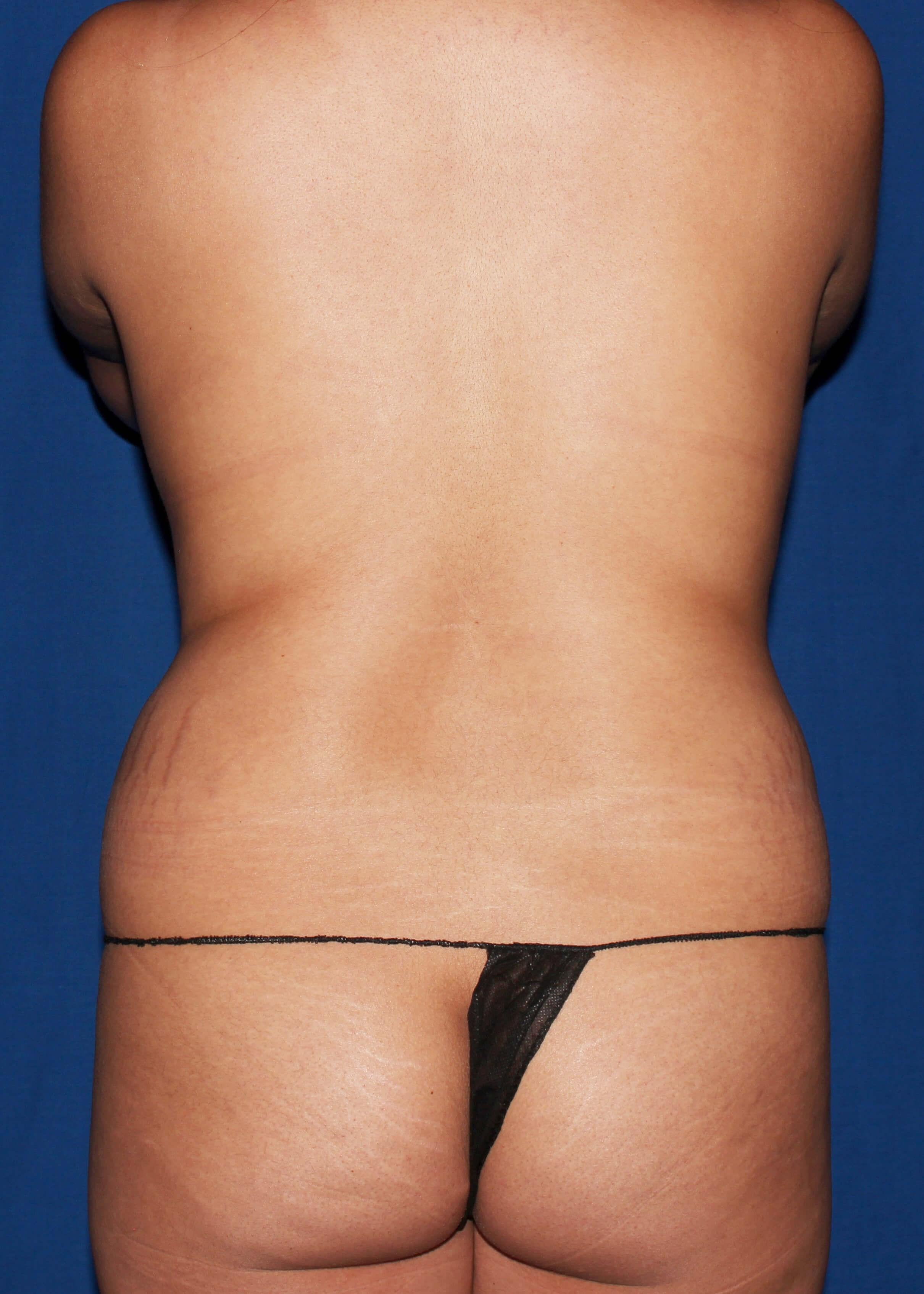 Before Liposuction - scottsdale snatchted waist AZ