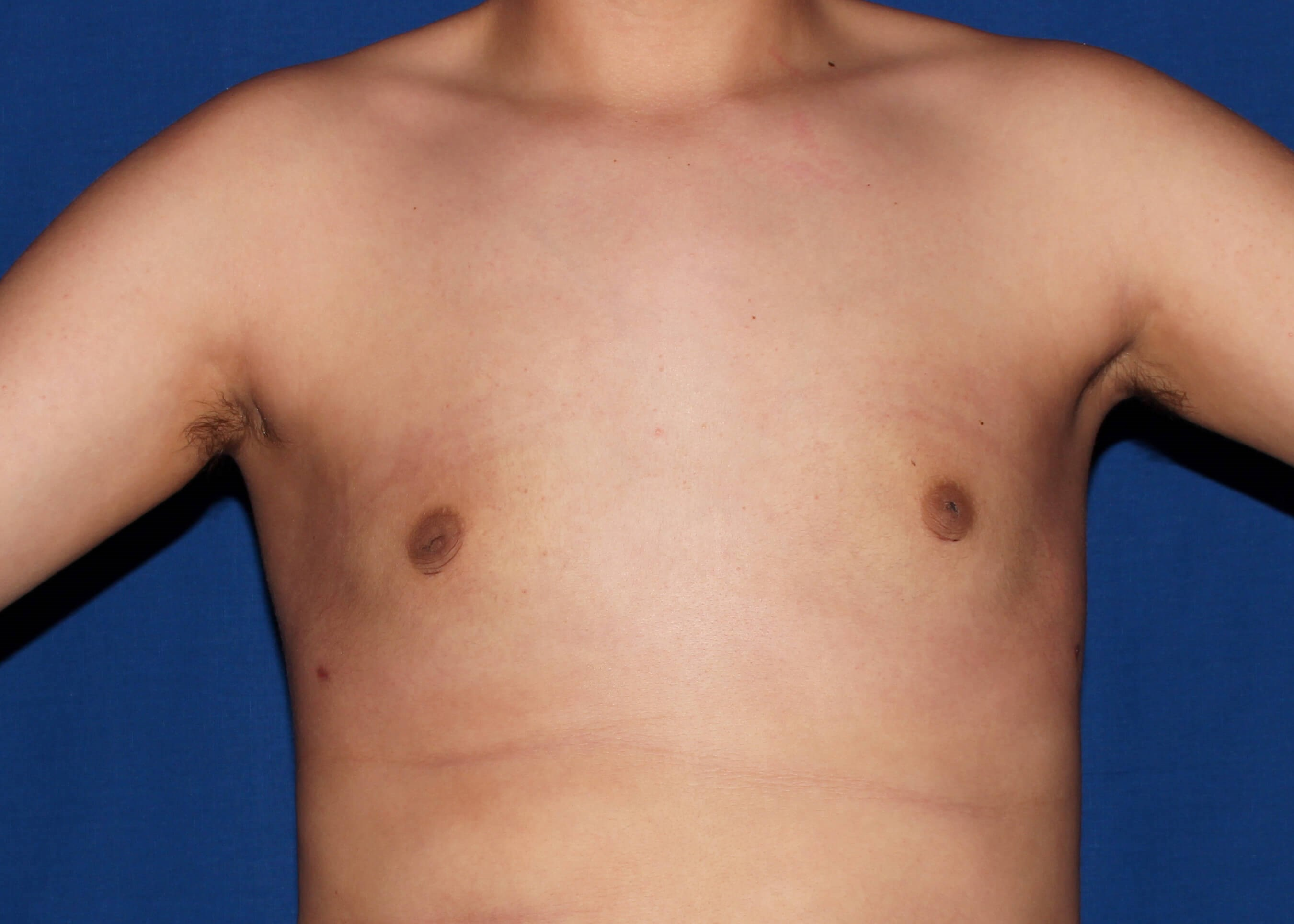 Gynecomastia after - scottsdale male breast surgery