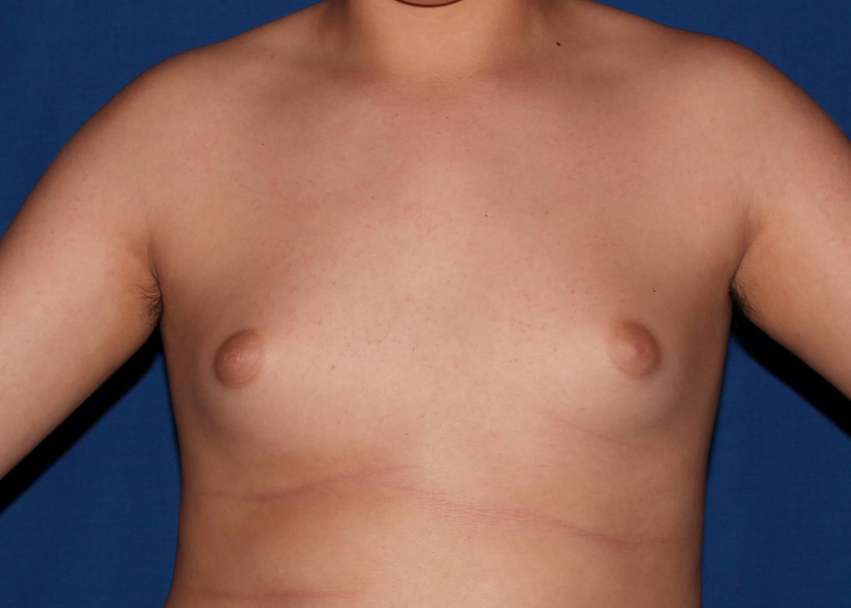 Gynecomastia Before - scottsdale male breast surgery
