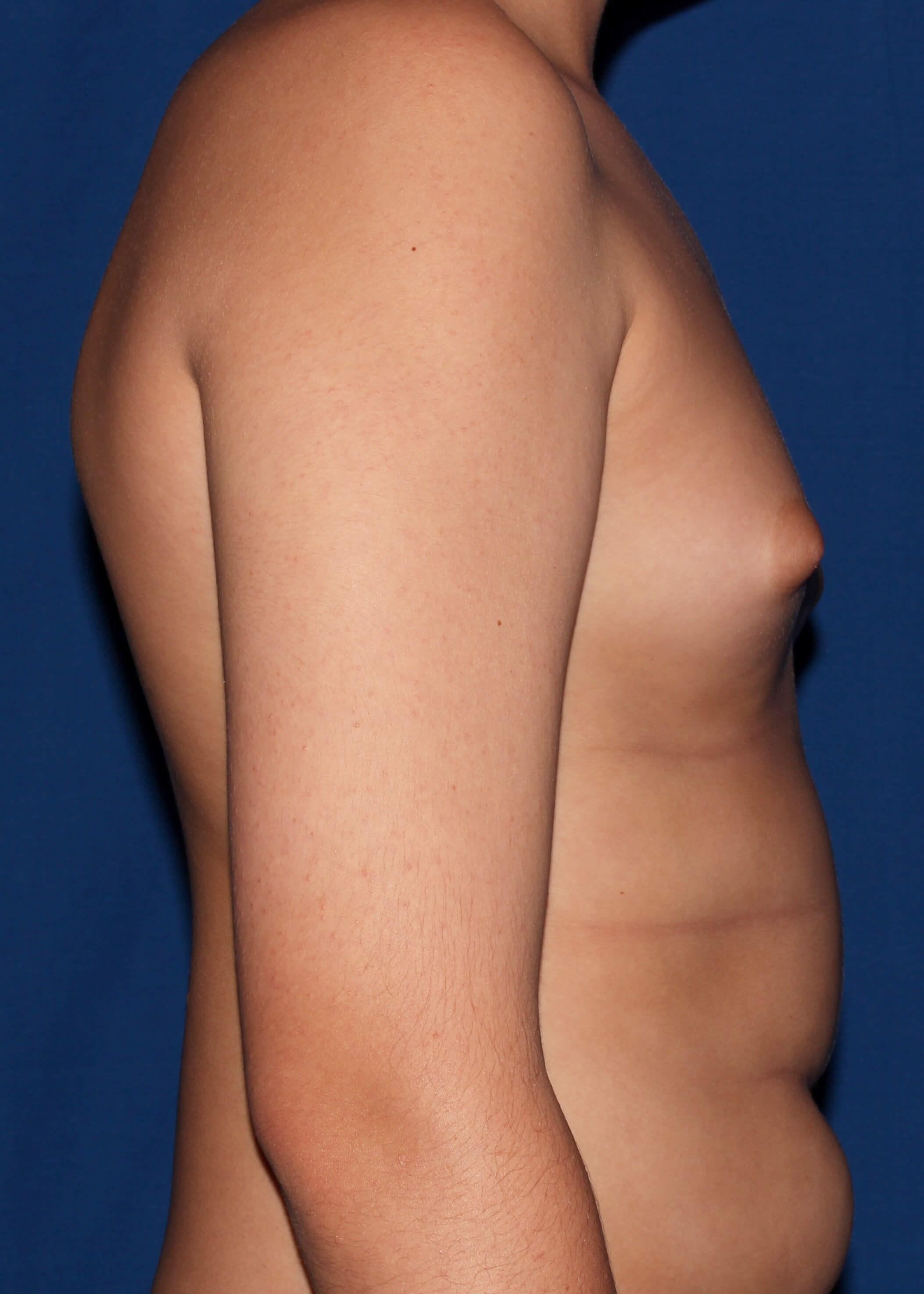Gynecomastia Before - scottsdale breast reduction AZ