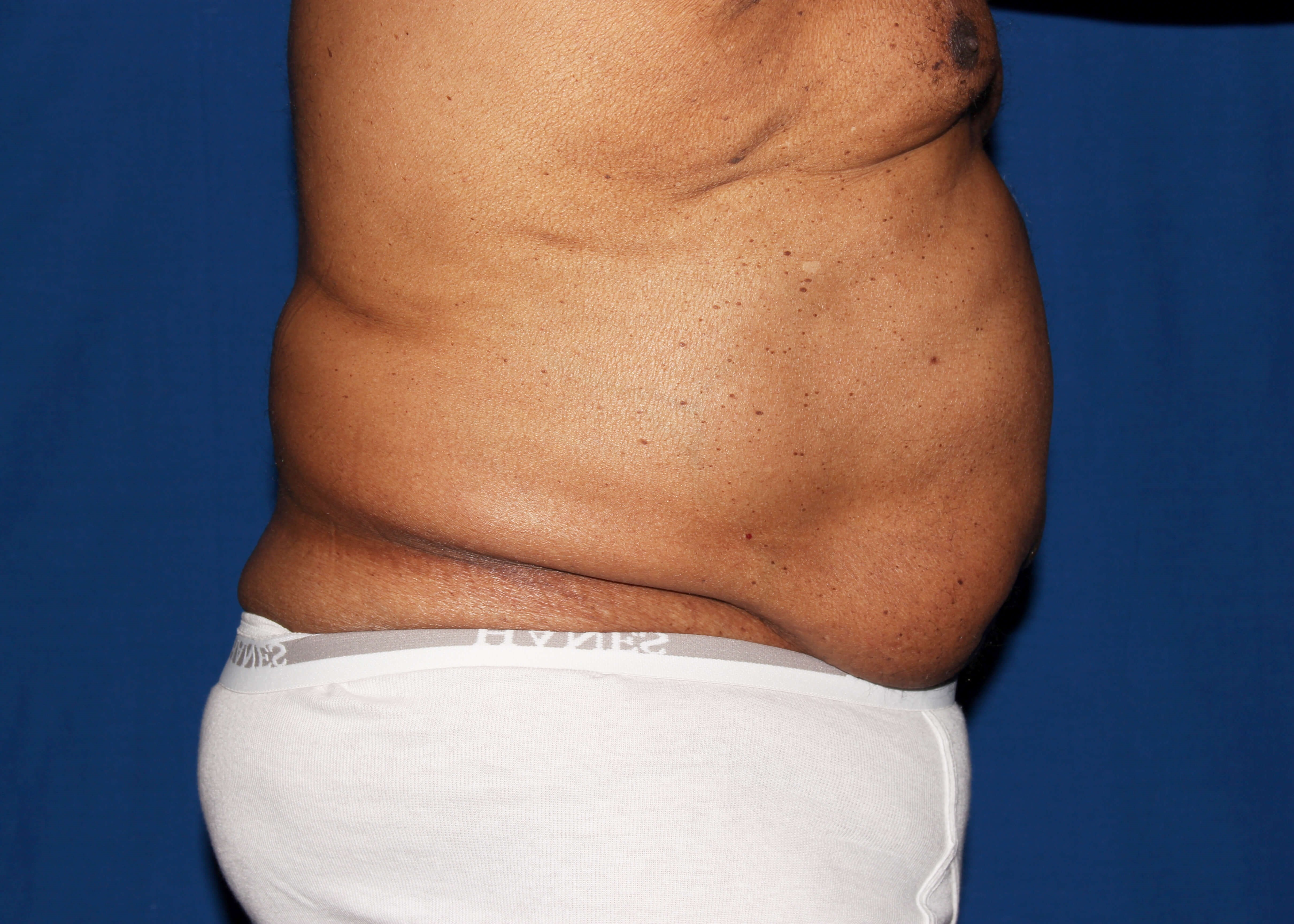 Trusculpt 3D Before - lunchtime skinny scottsdale