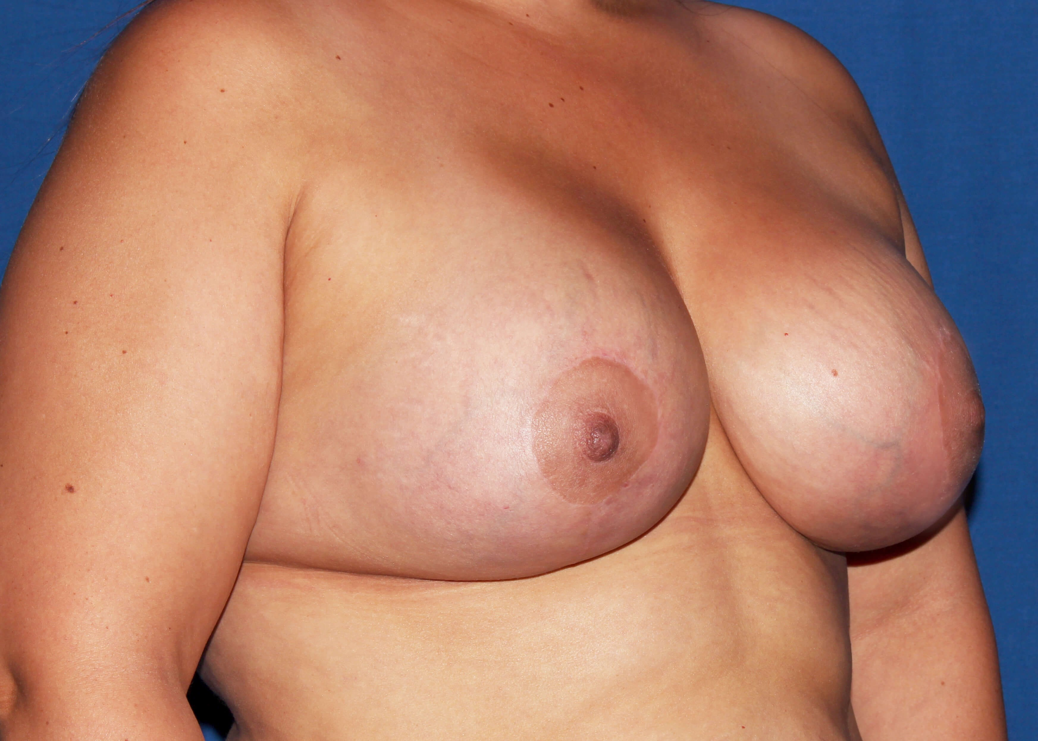 after mastopexy Right Oblique View - Right Oblique View