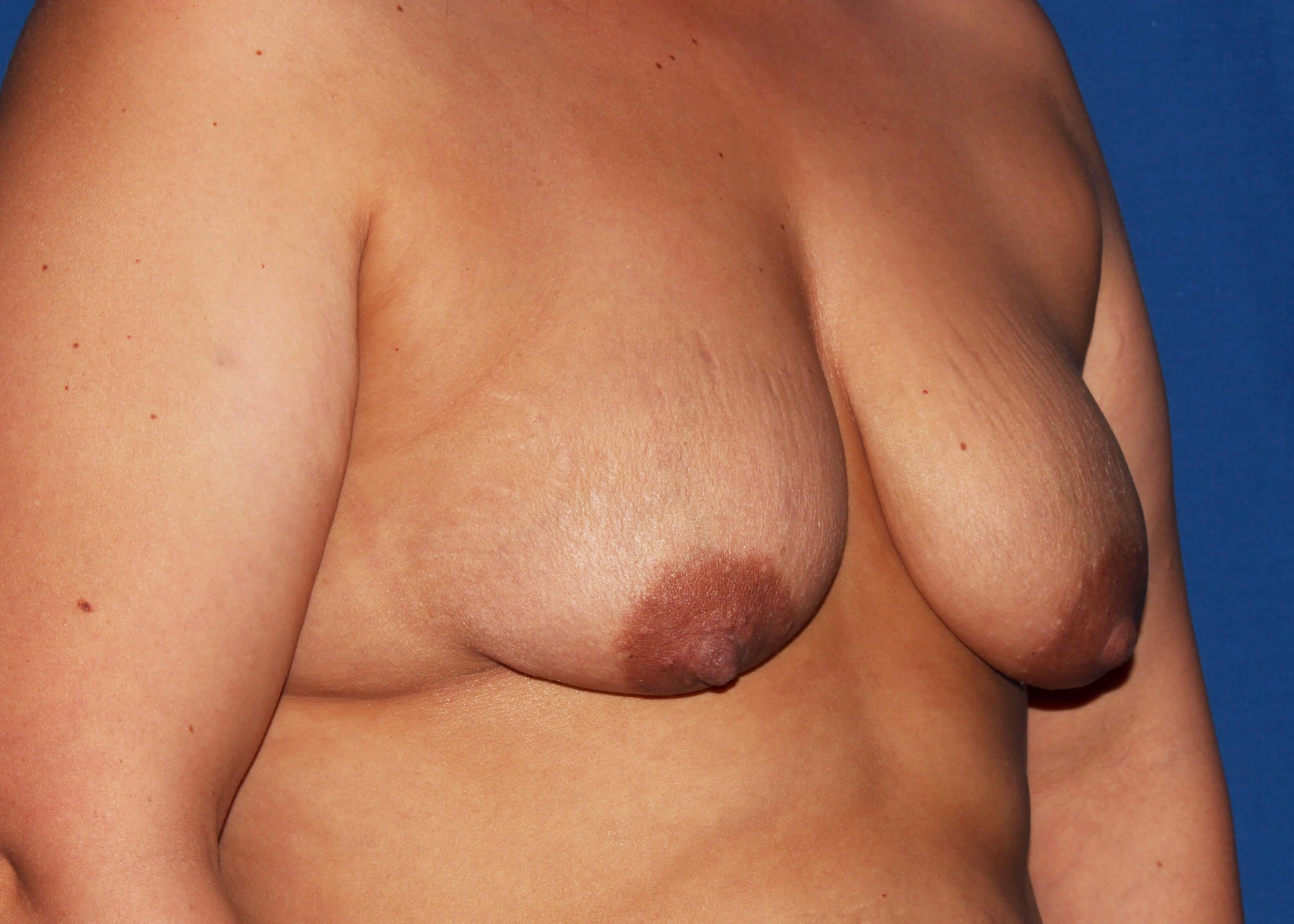 before mastopexy Right Oblique View - Right Oblique View