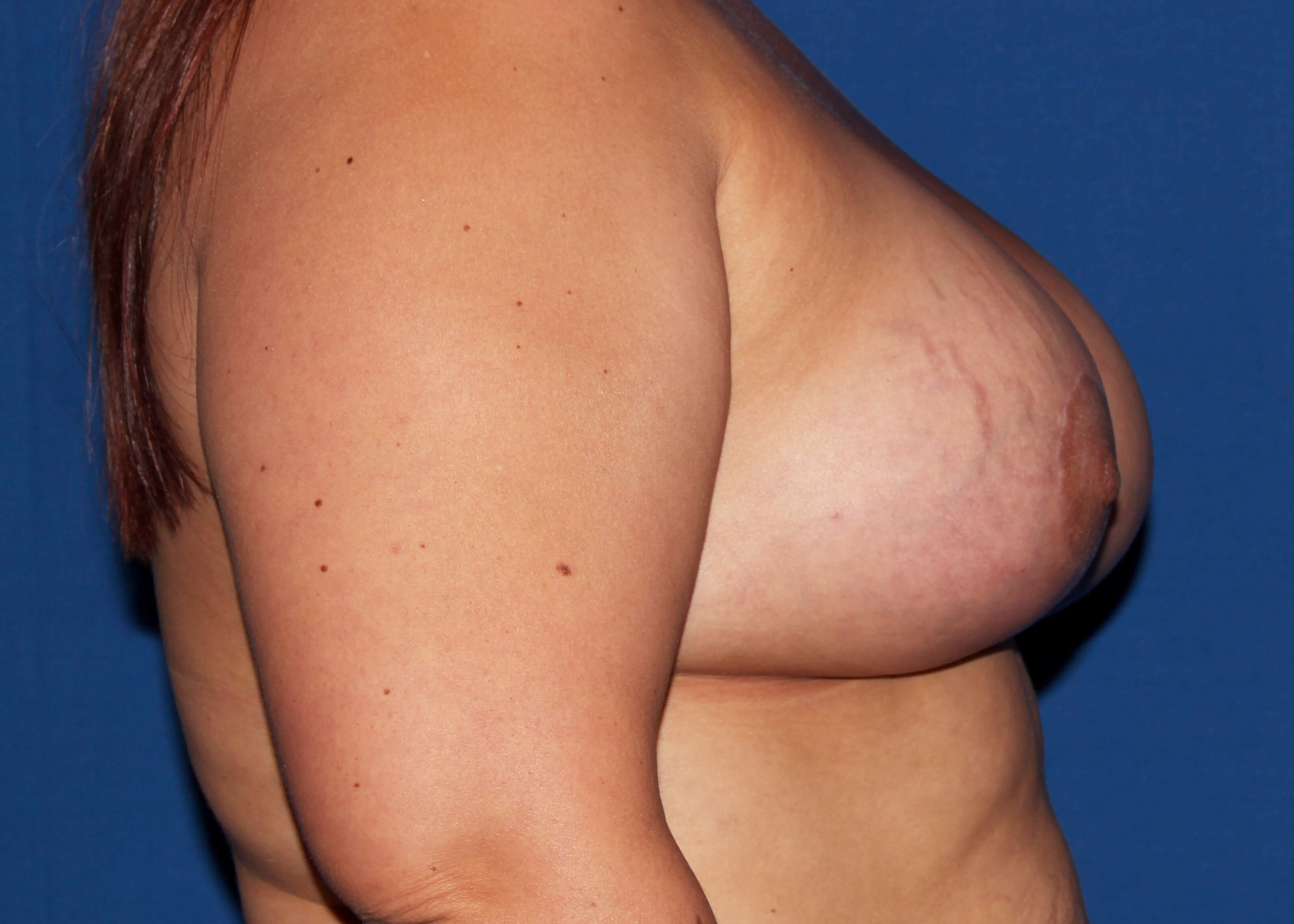 after mastopexy Right Side - Right Side