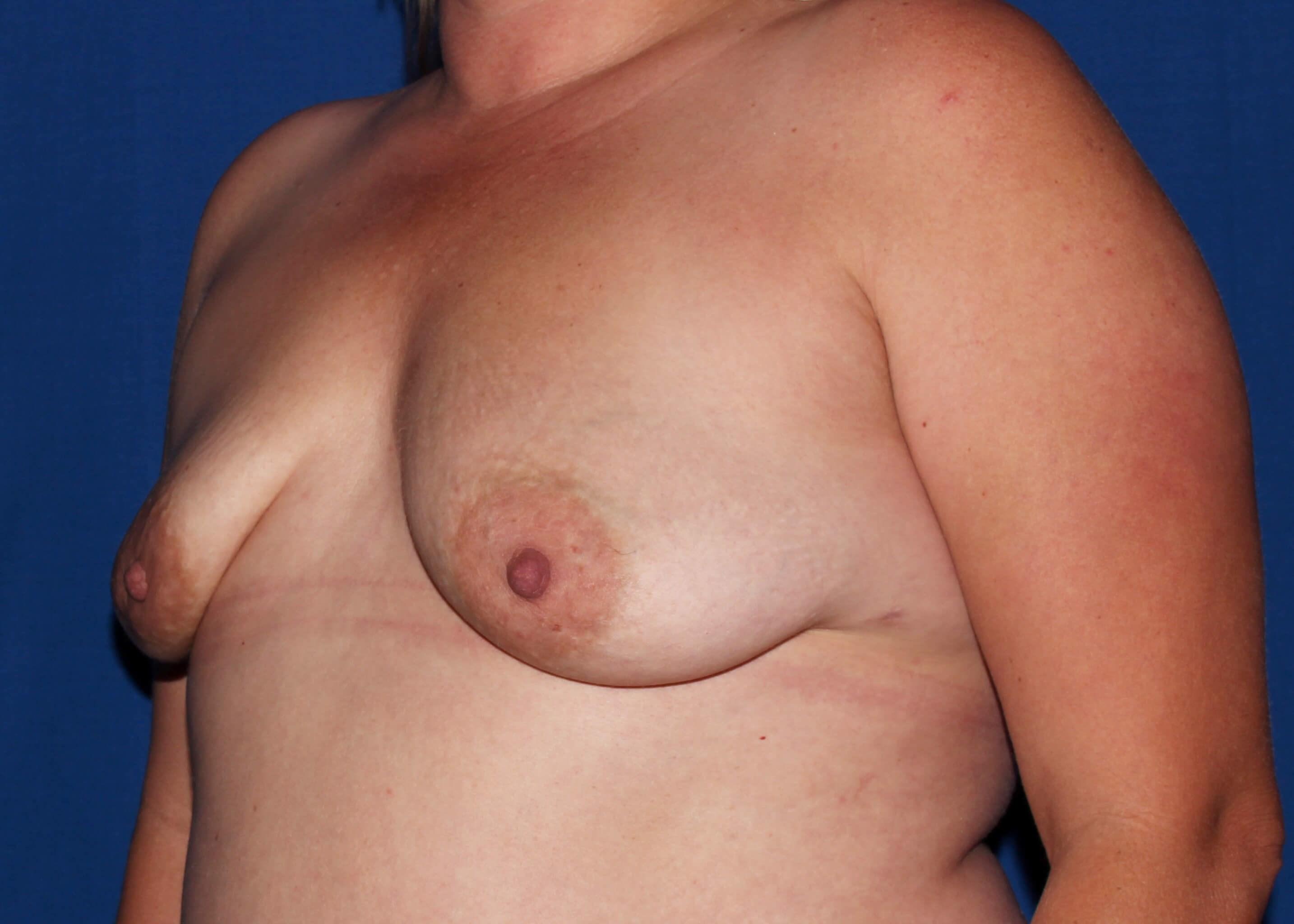 before breast augmentation Left Oblique View - Left Oblique View