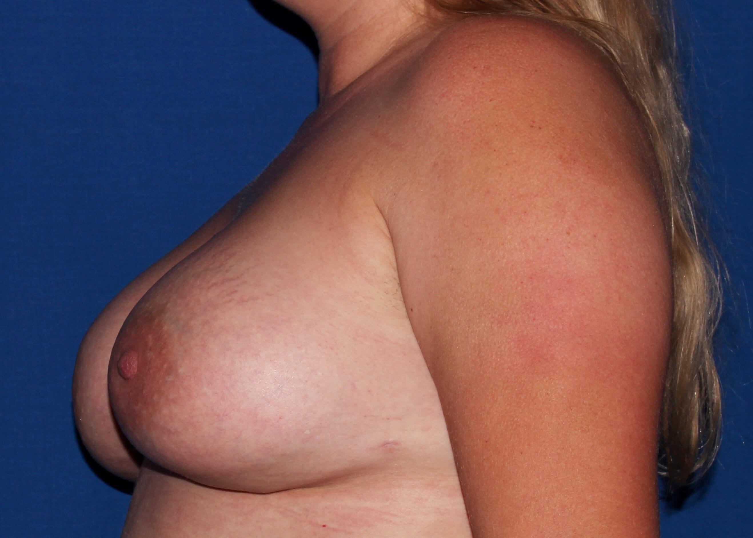 after breast augmentation Left Side - Left Side