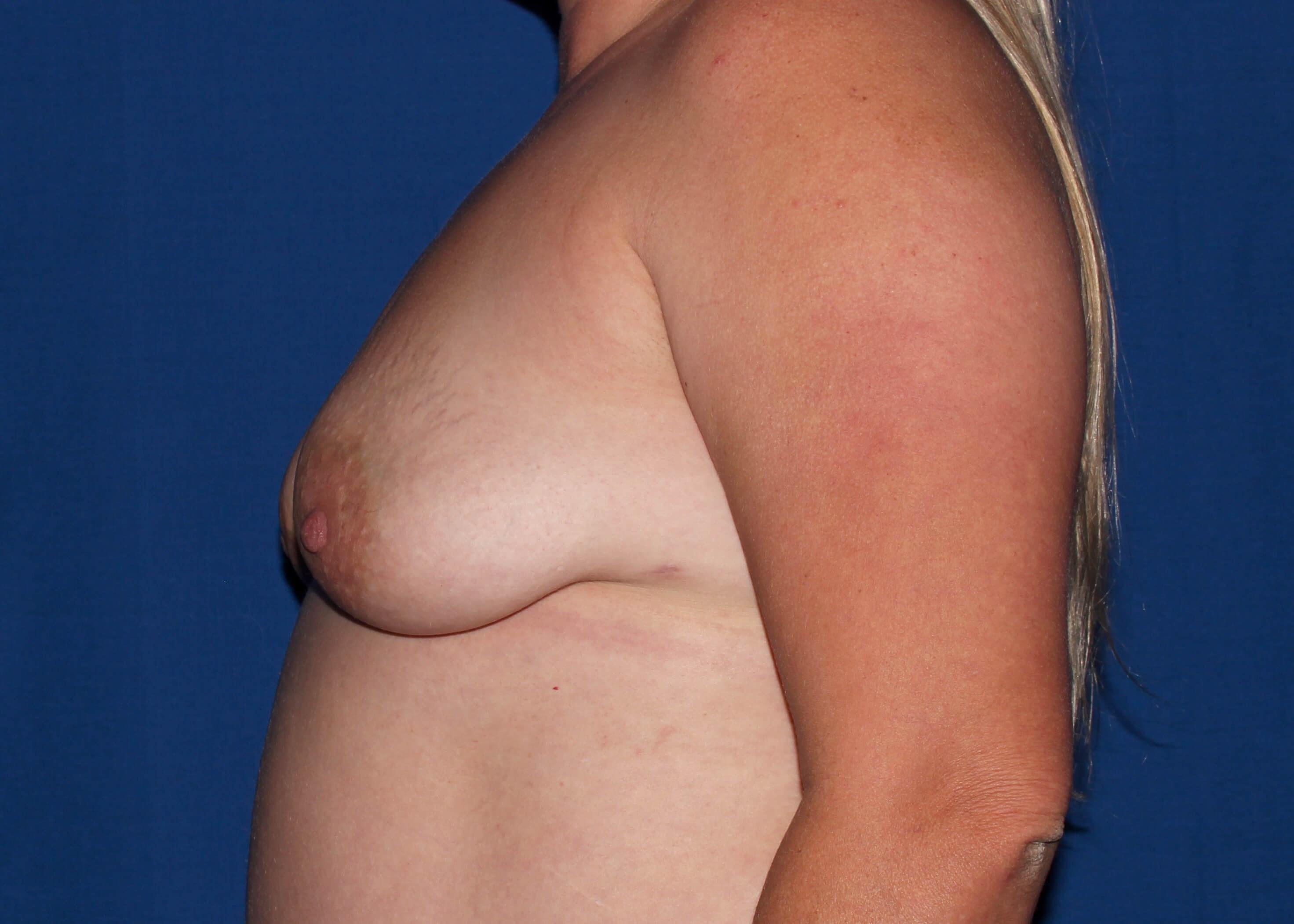 before breast augmentation Left Side - Left Side