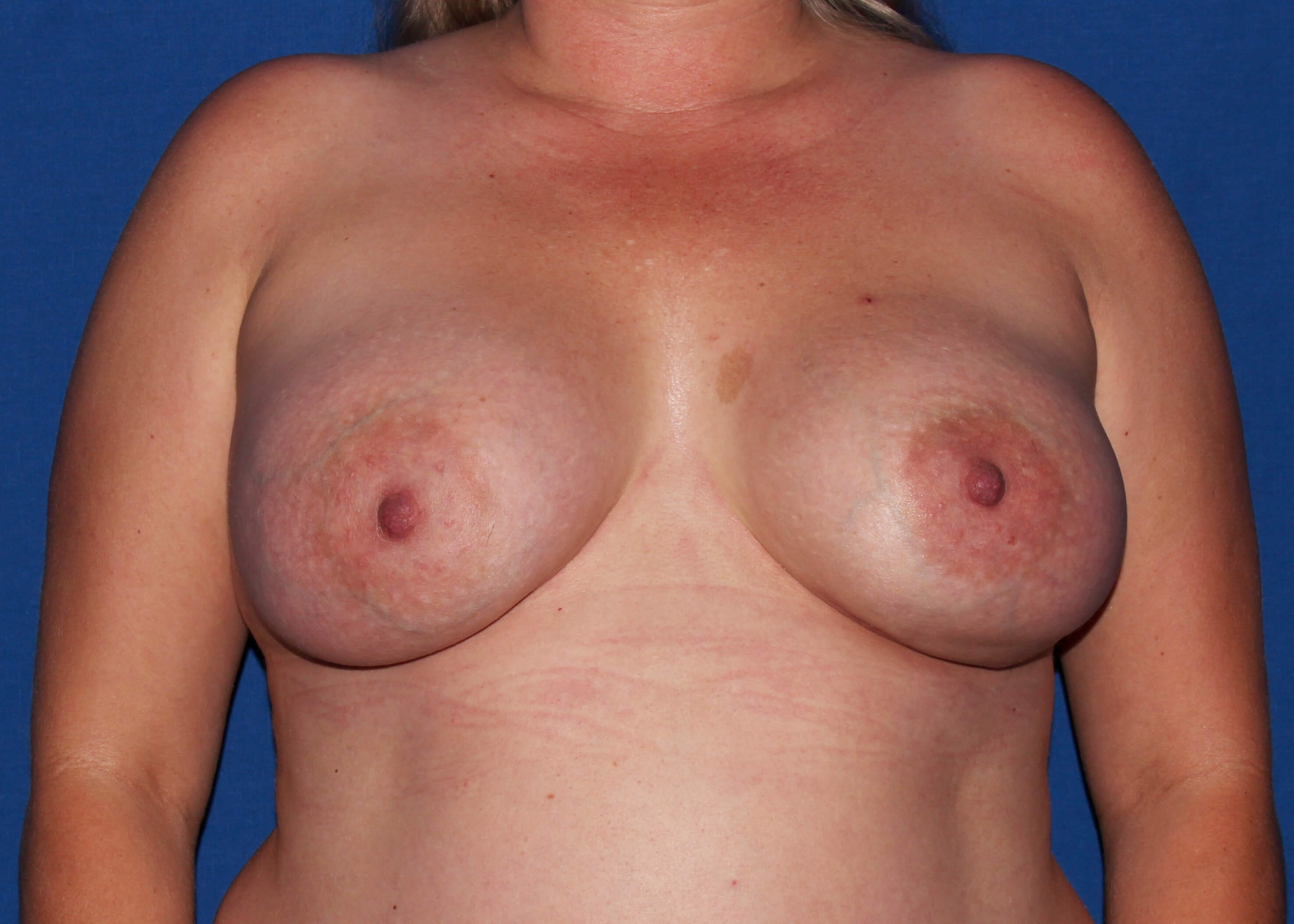 after breast augmentation - Breast Augmentation