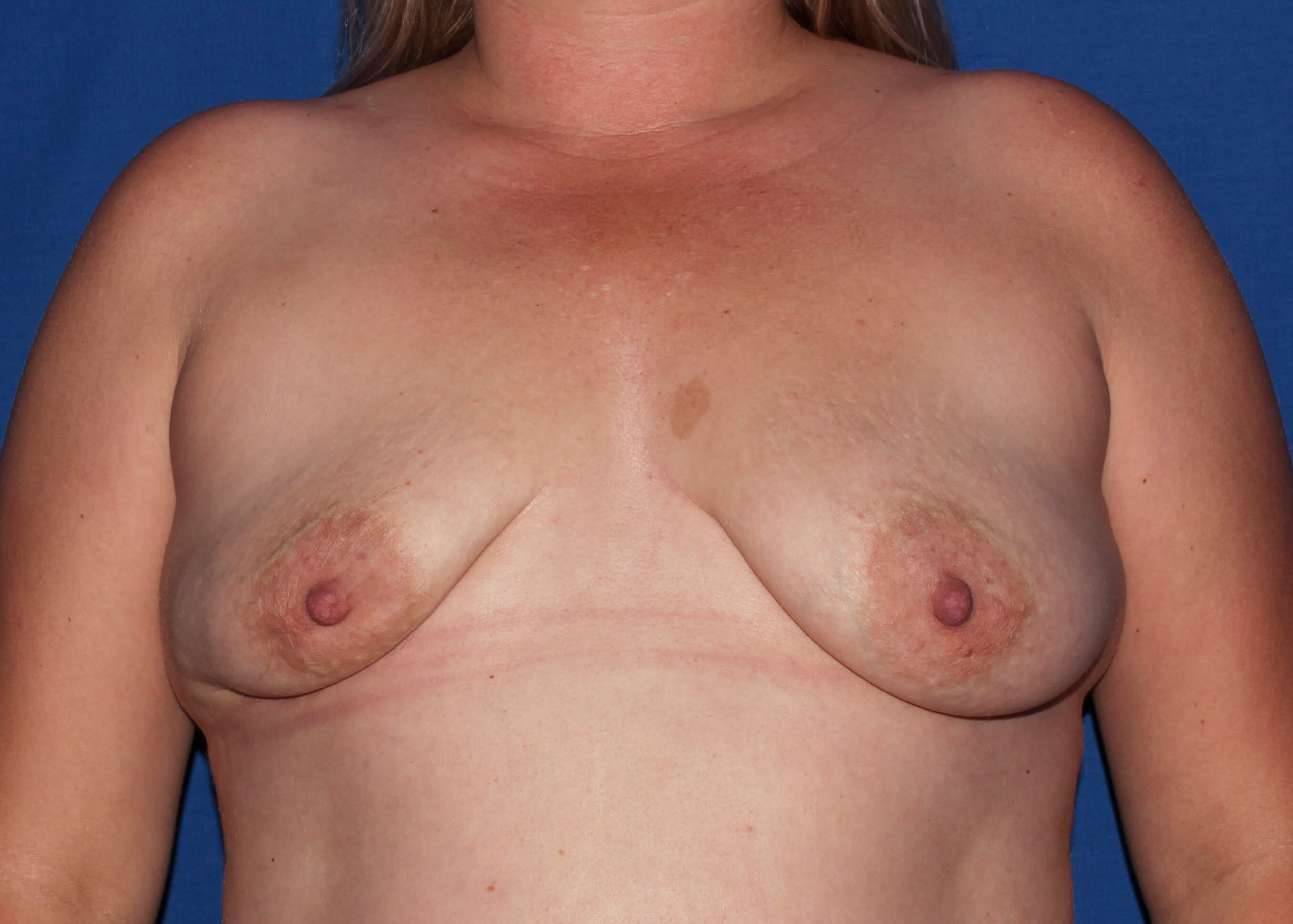 before breast augmentation - Breast Augmentation