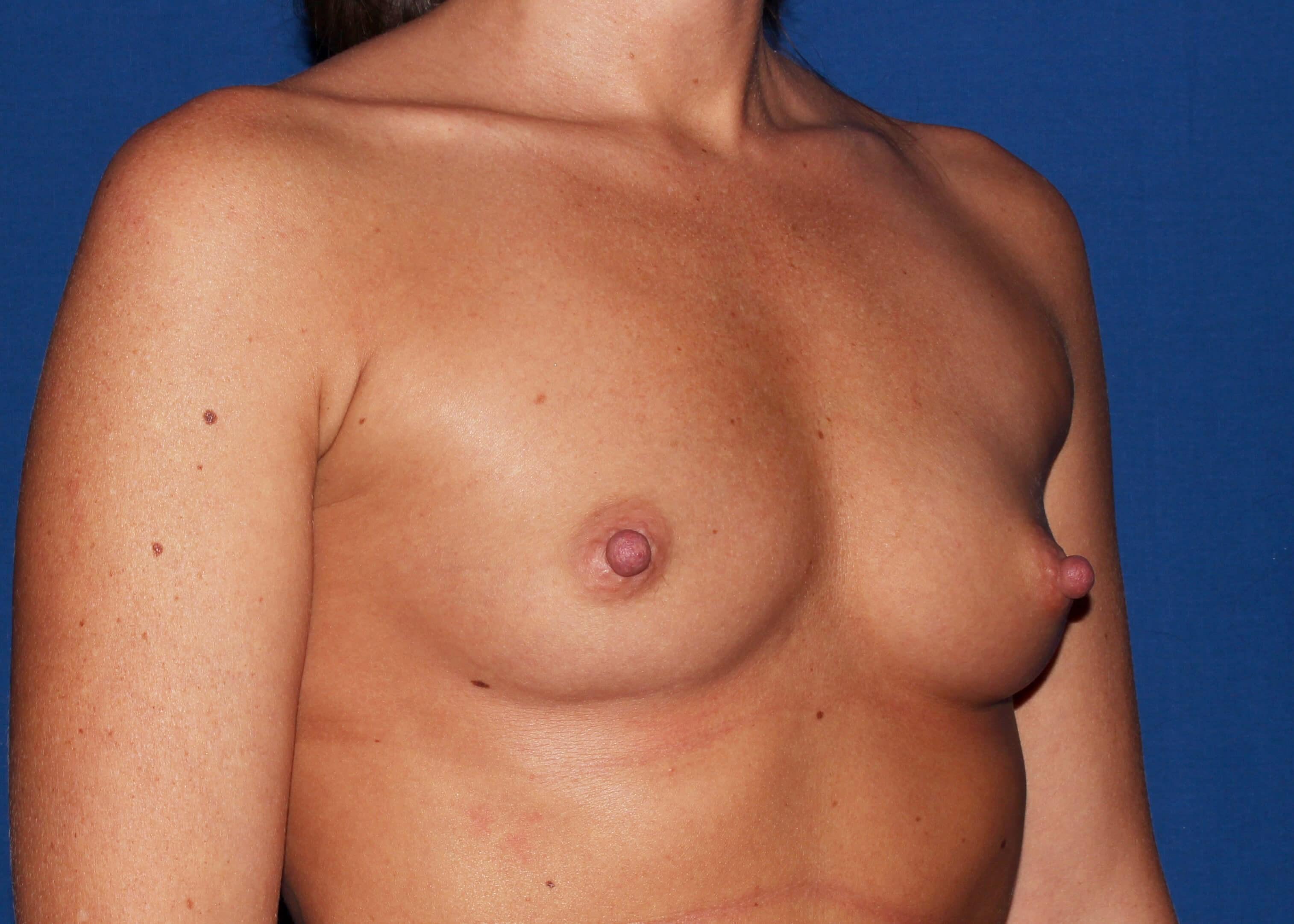 Breast Augmentation Before Right Oblique View - Right Oblique View
