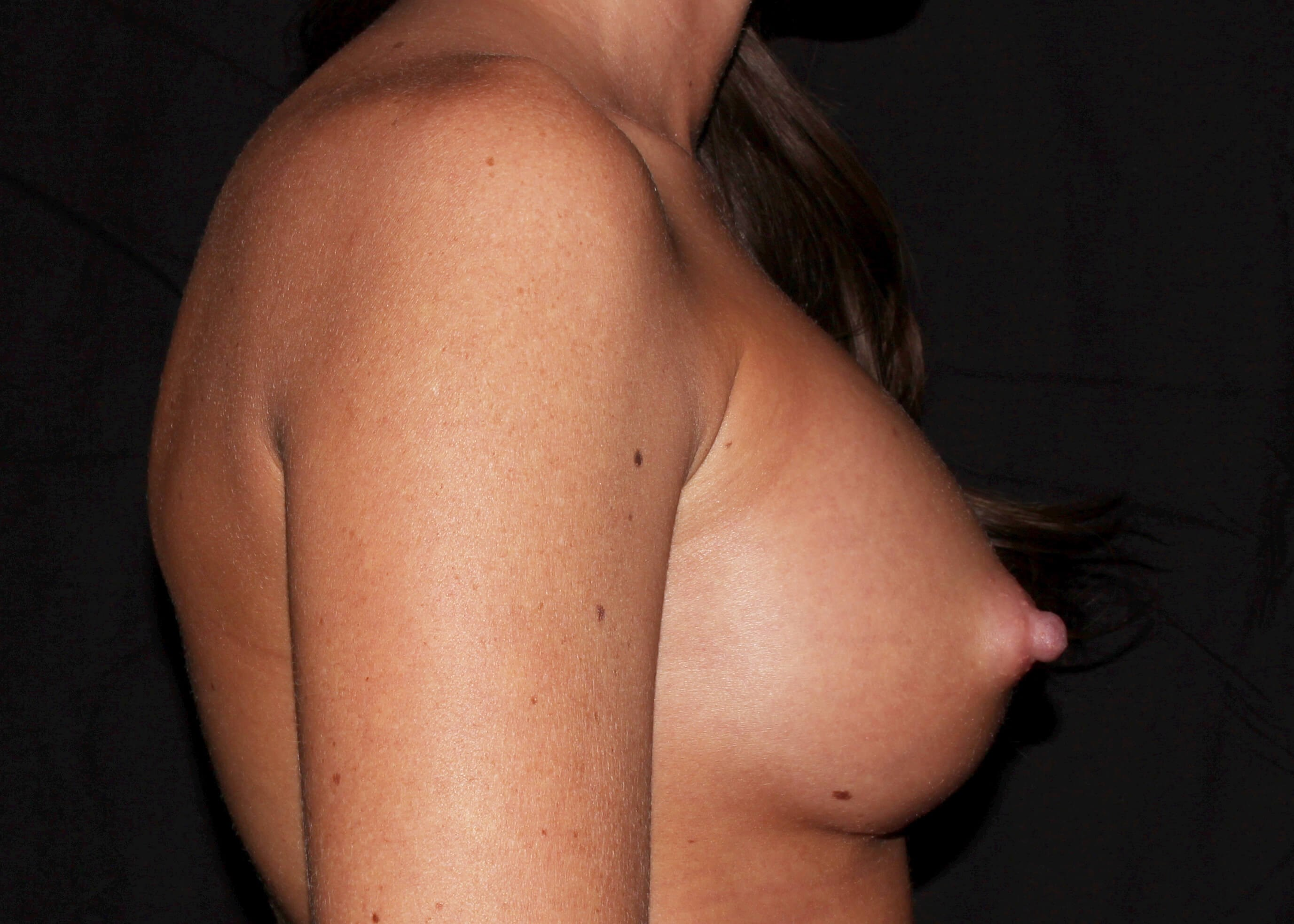 Breast Augmentation After Right Side - Right Side