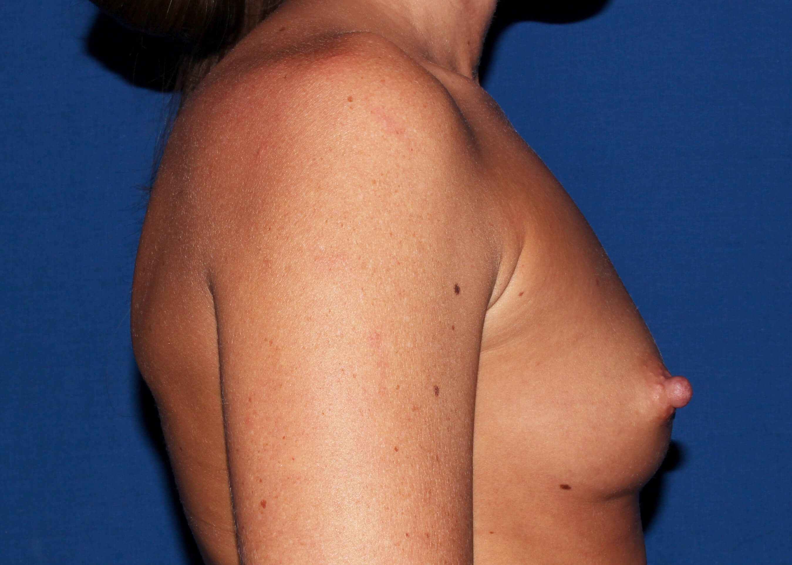 Breast Augmentation Before Right Side - Right Side