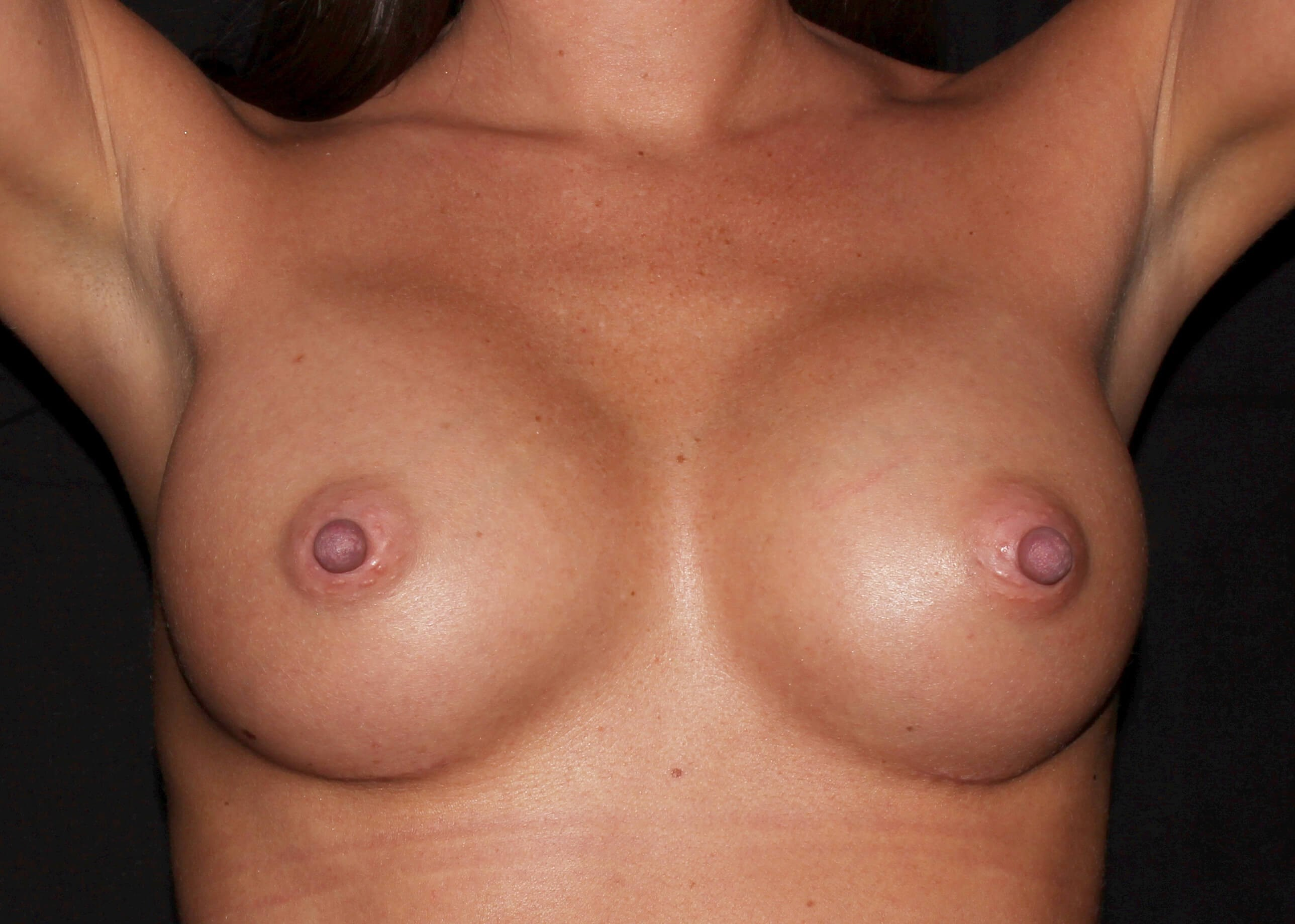 Breast Augmentation After - Breast Augmentation