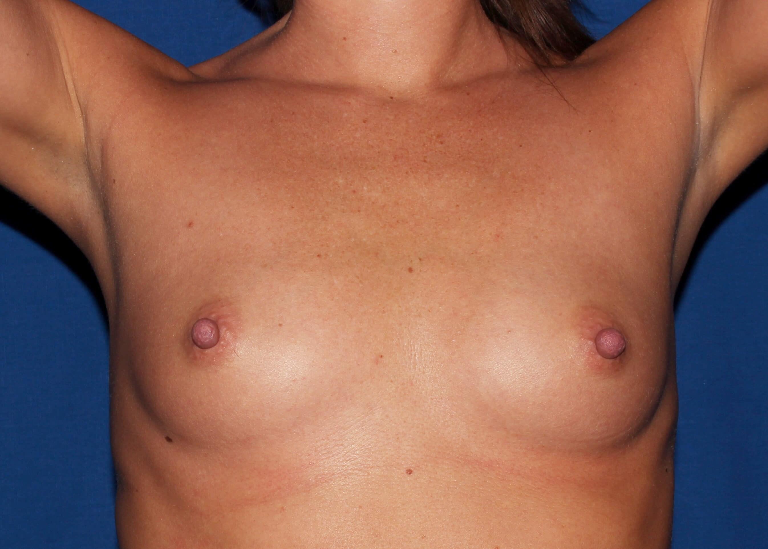 Breast Augmentation Before - Breast Augmentation