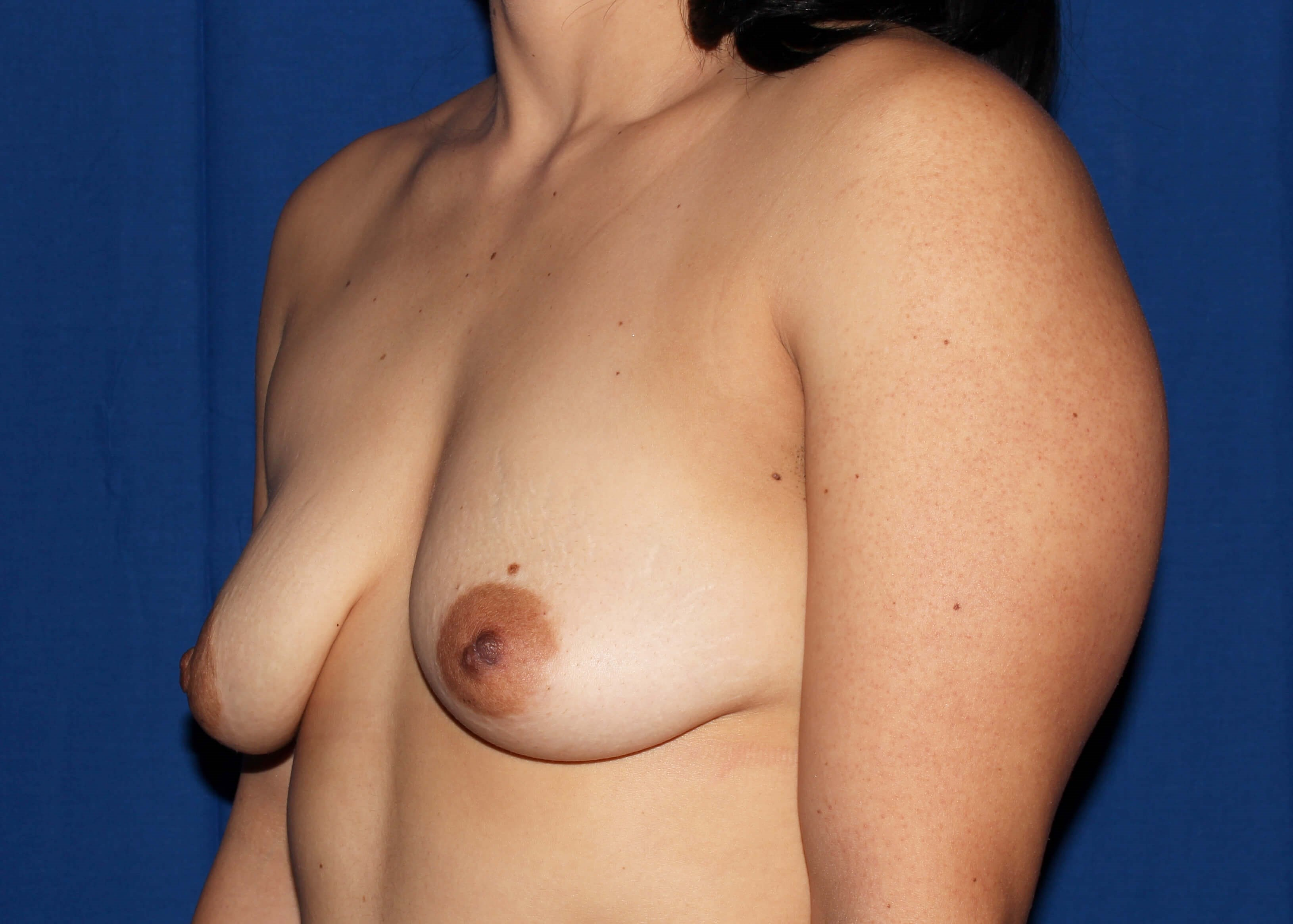 before breast augmentation Left Oblique View - Left Oblique View