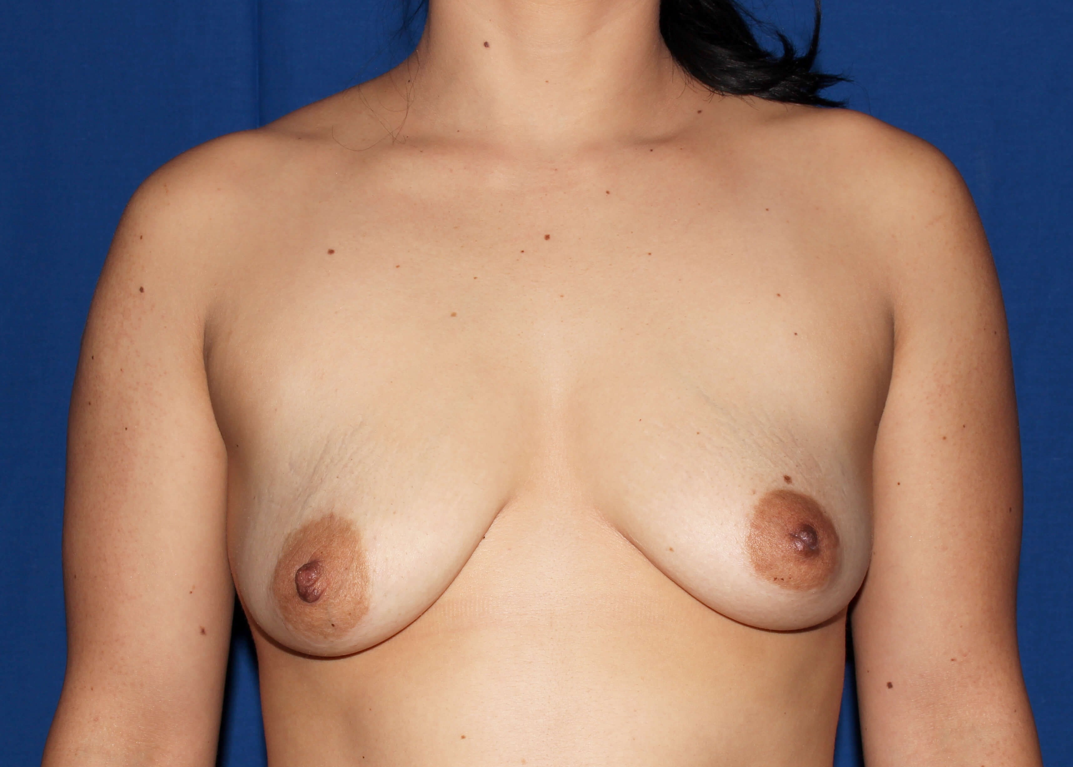 before breast augmentation - Breast Augmentation