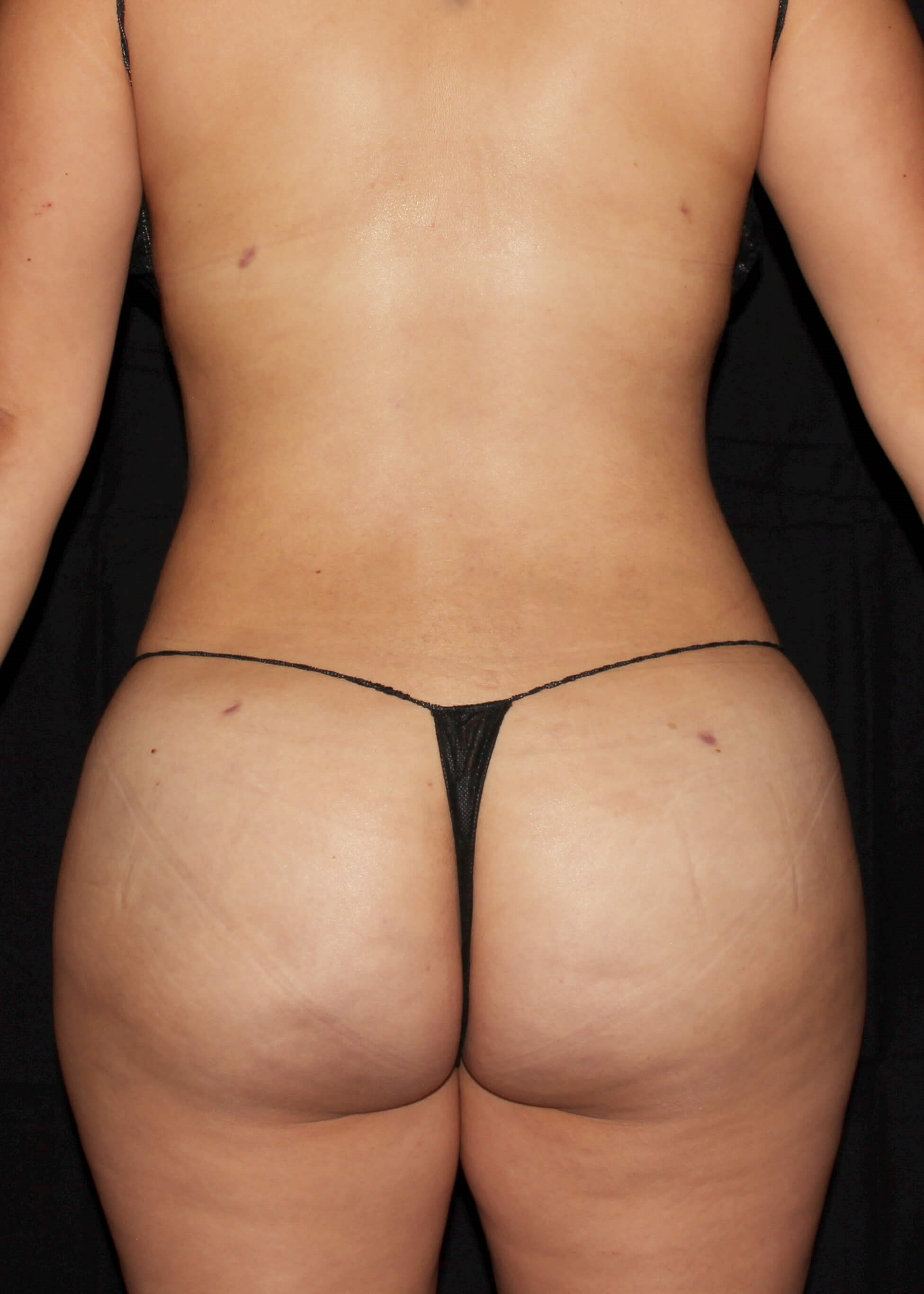 Full Torso Liposuction After - BACK VIEW