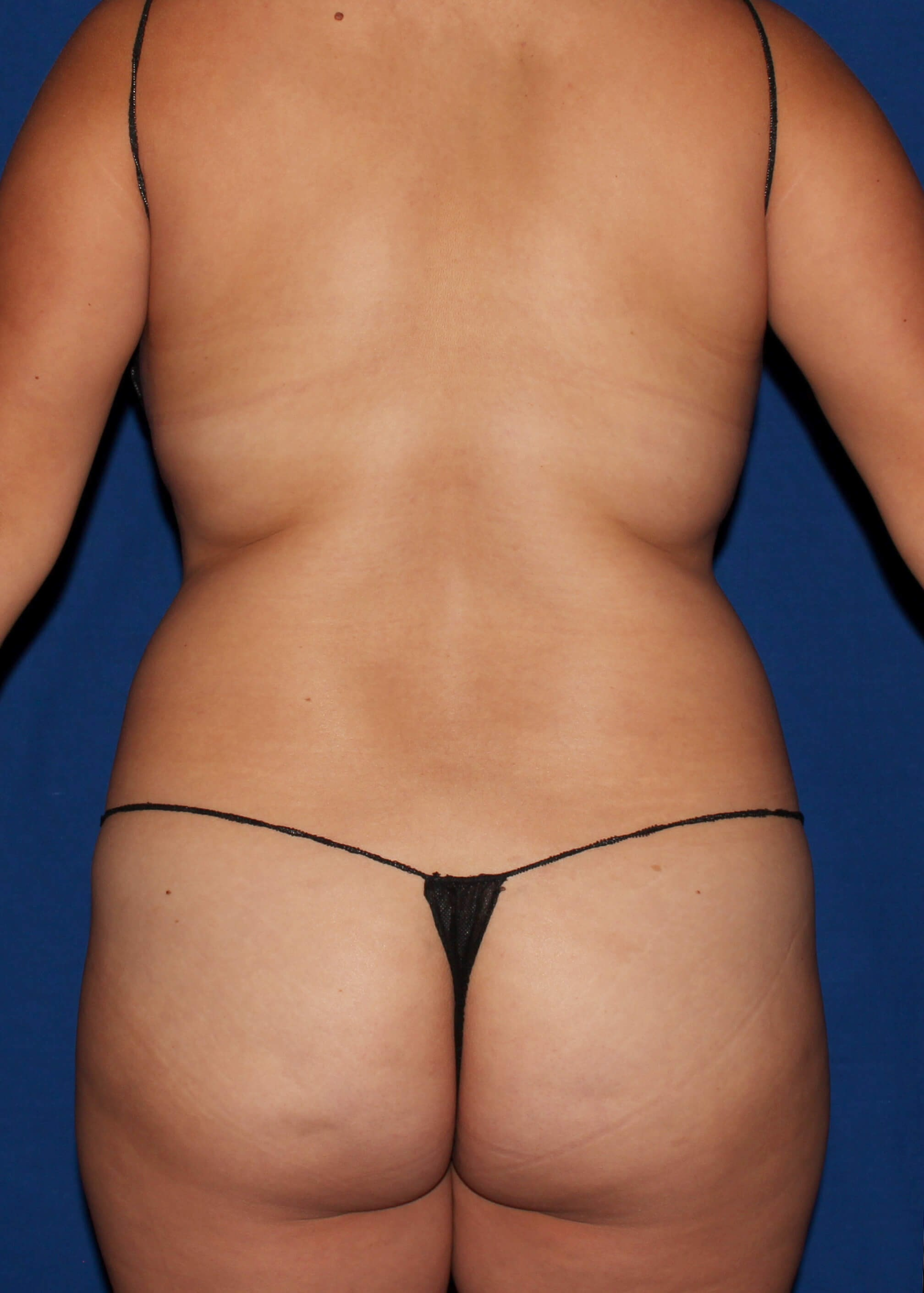 Full Torso Liposuction Before - BACK VIEW