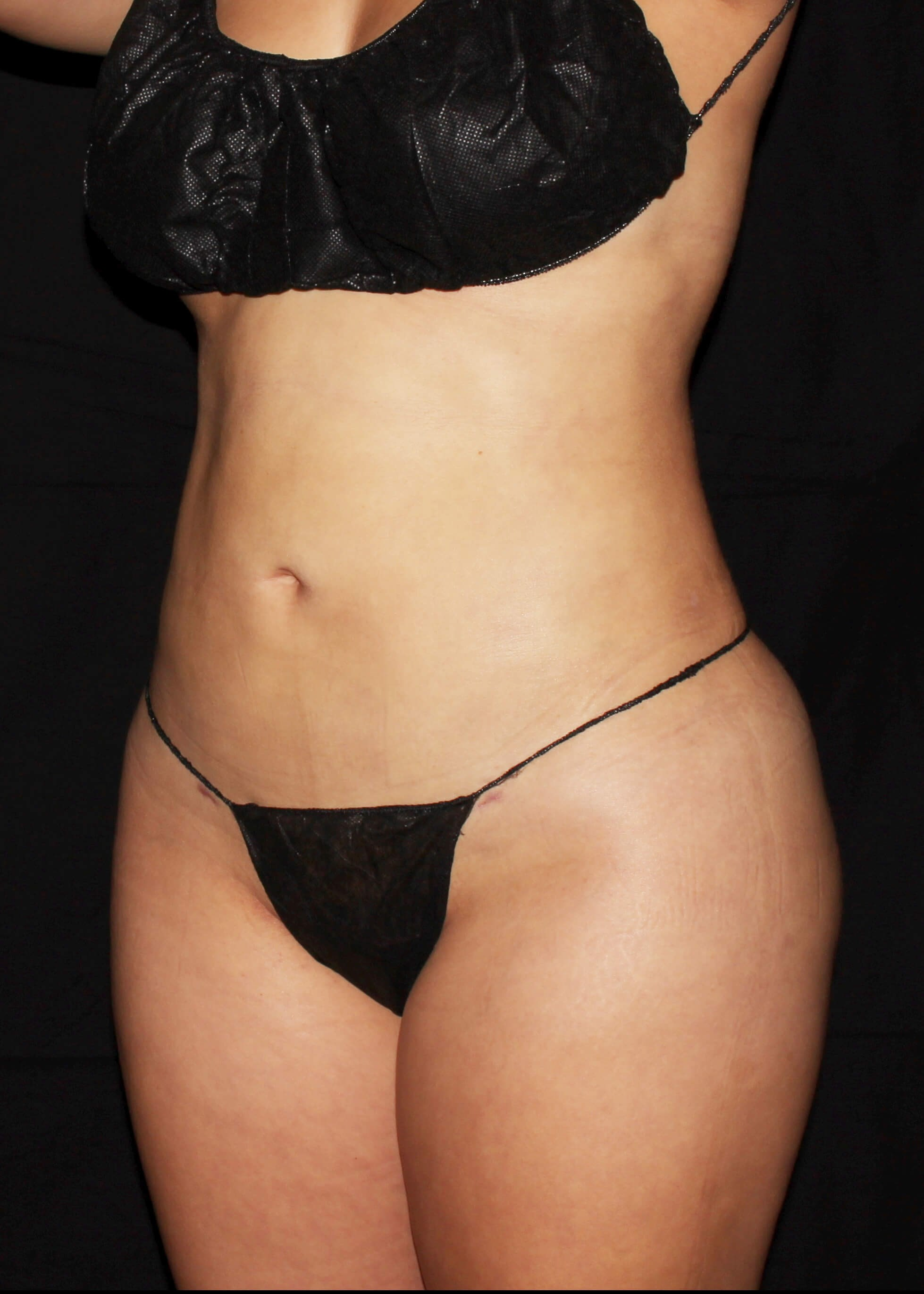 Full Torso Liposuction After - LEFT FRONT SIDE VIEW