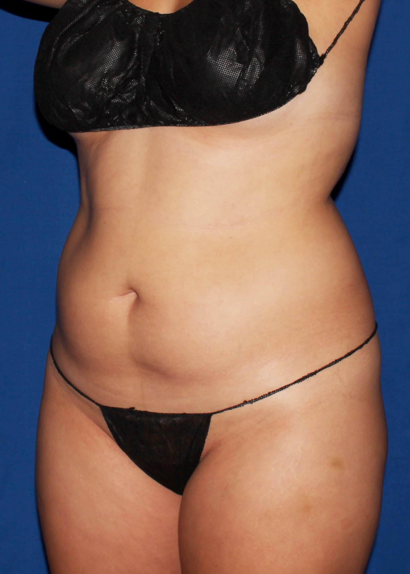 Full Torso Liposuction Before - LEFT FRONT SIDE VIEW