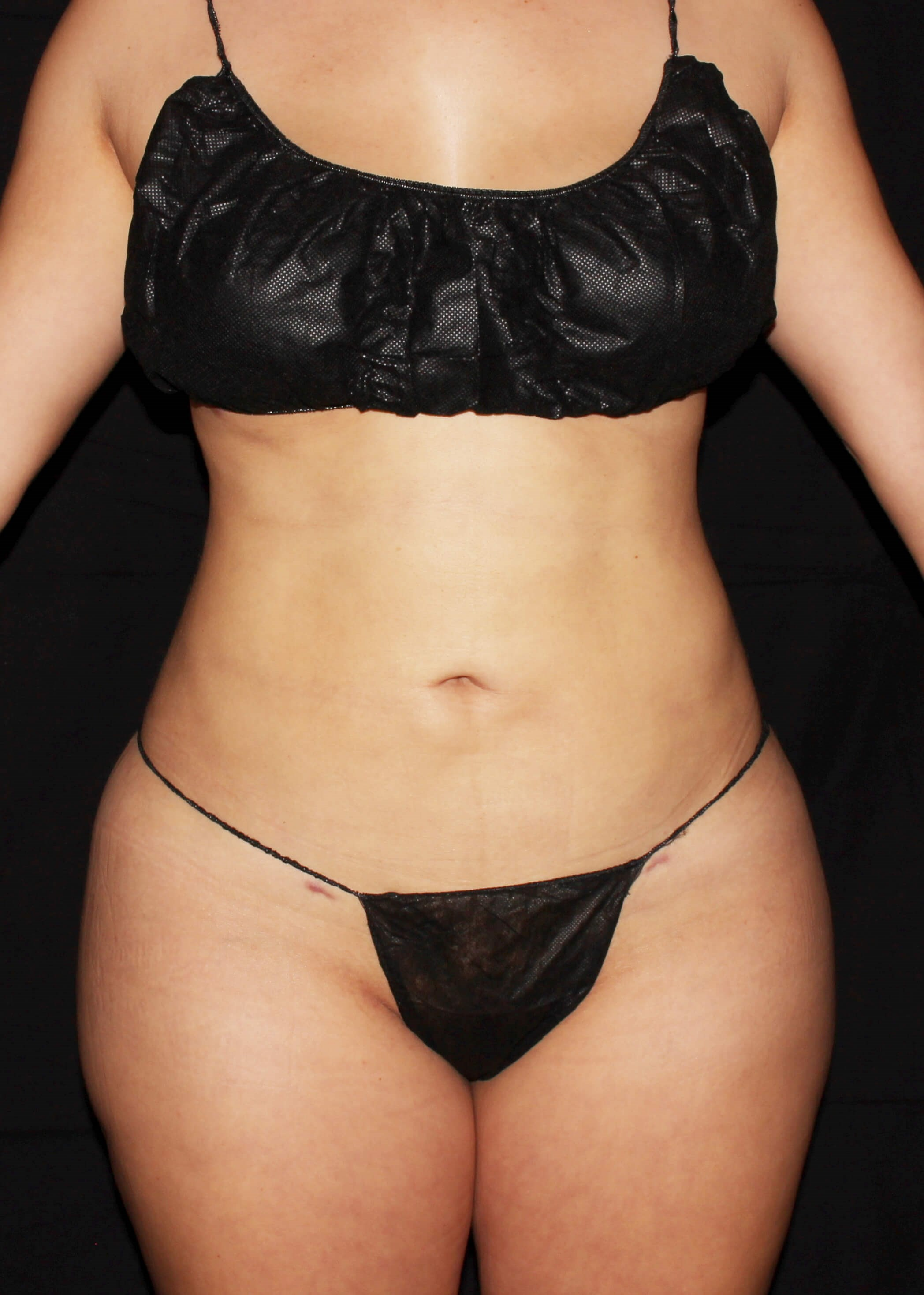 Full Torso Liposuction After - Full Torso Lipo and safer BBL