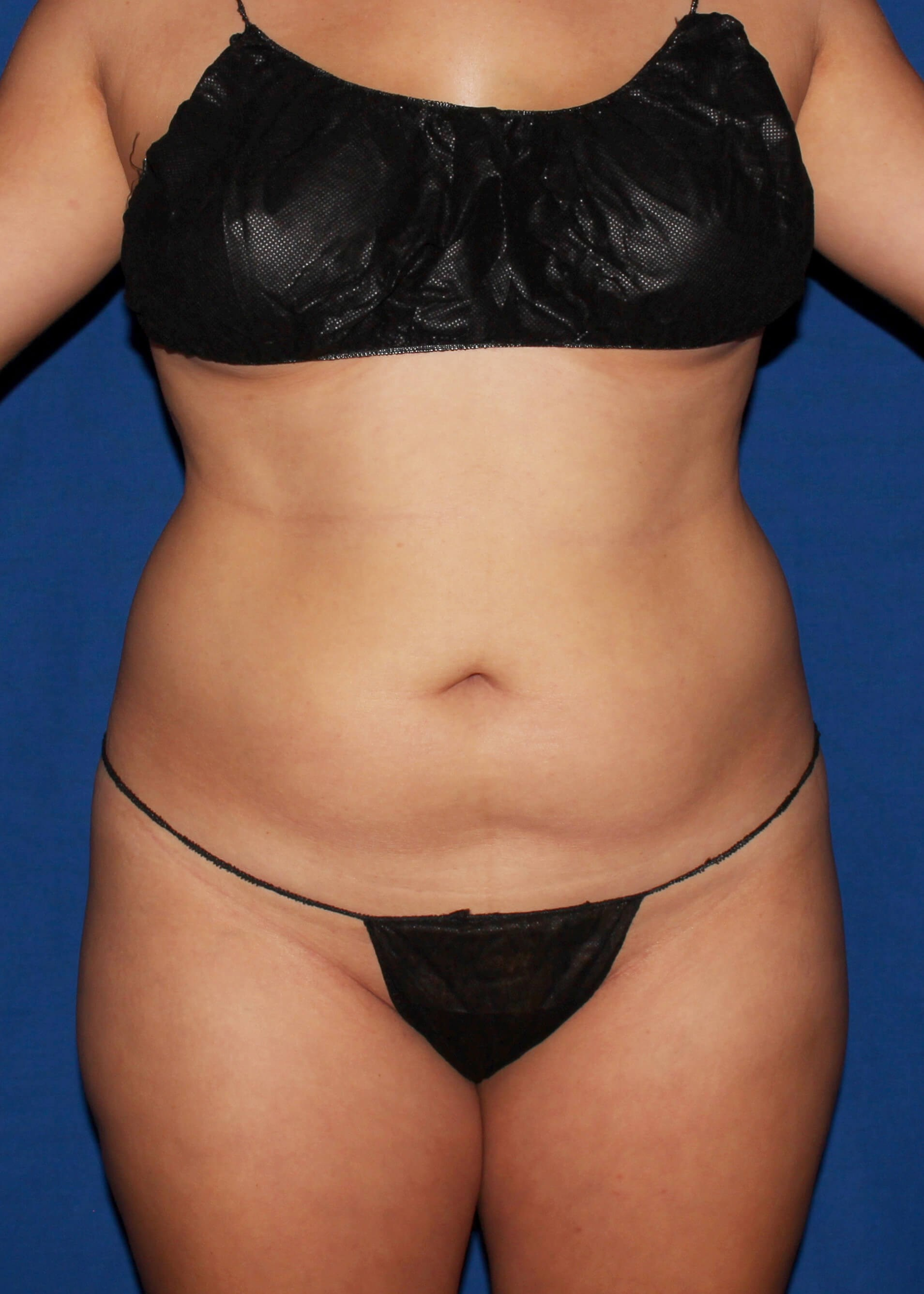 Full Torso Liposuction Before - Full Torso Lipo and safer BBL