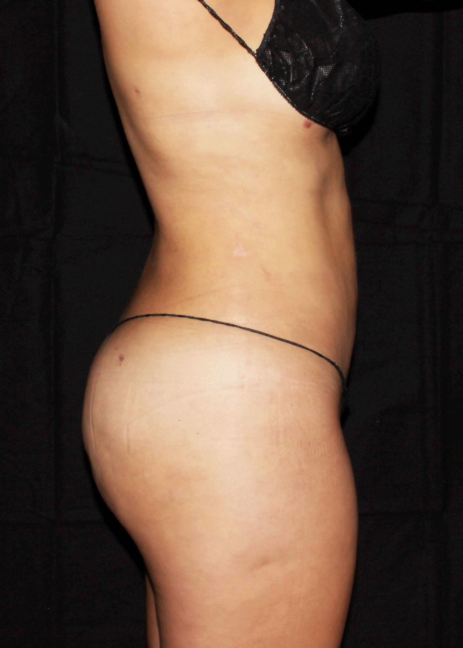 Full Torso Liposuction After - RIGHT SIDE VIEW