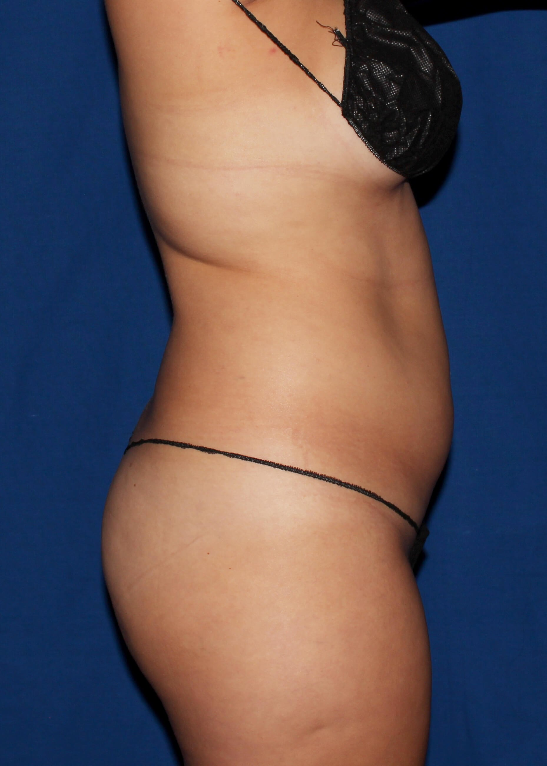 Full Torso Liposuction Before - RIGHT SIDE VIEW