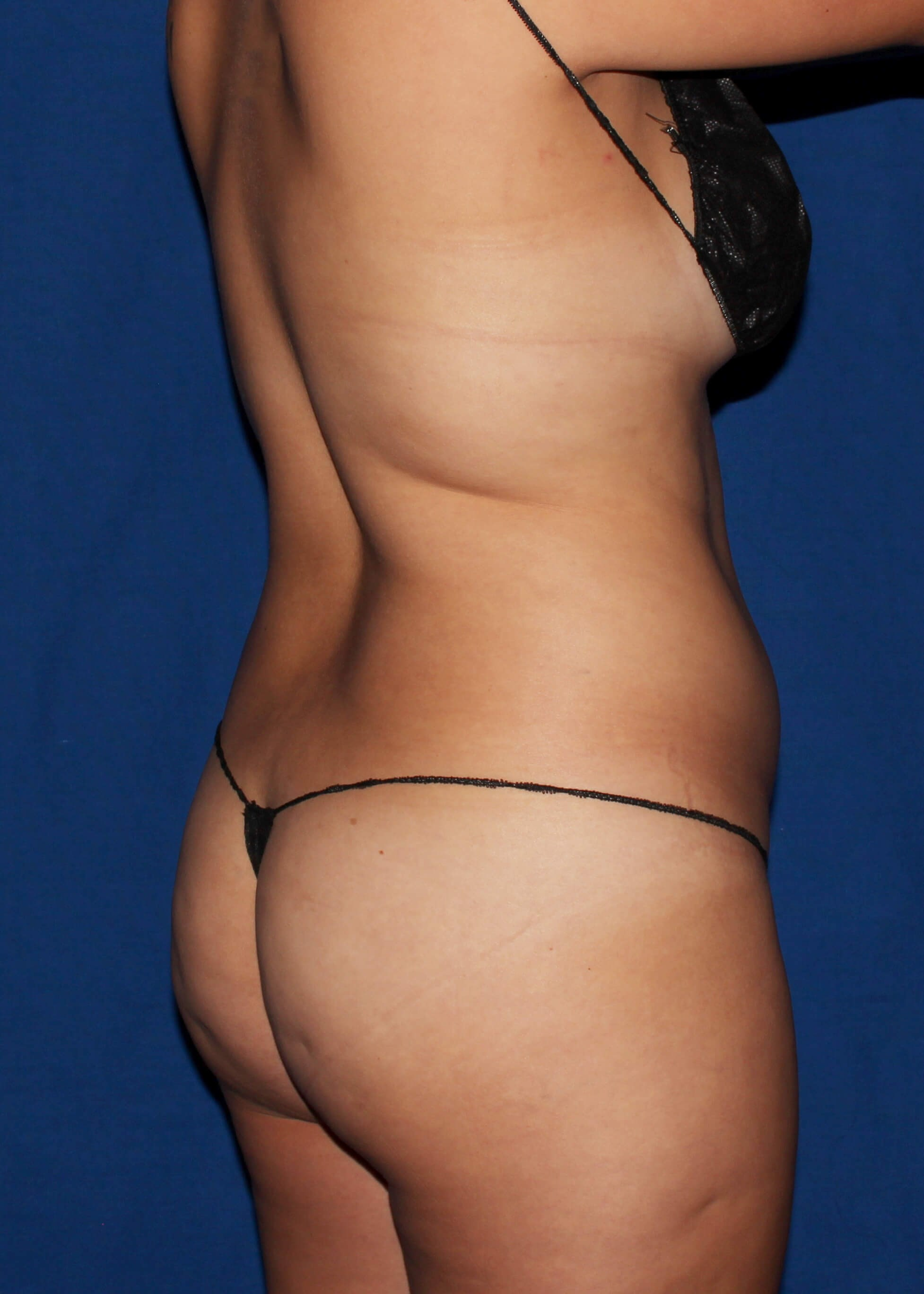 Full Torso Liposuction Before - RIGHT BACK SIDE VIEW