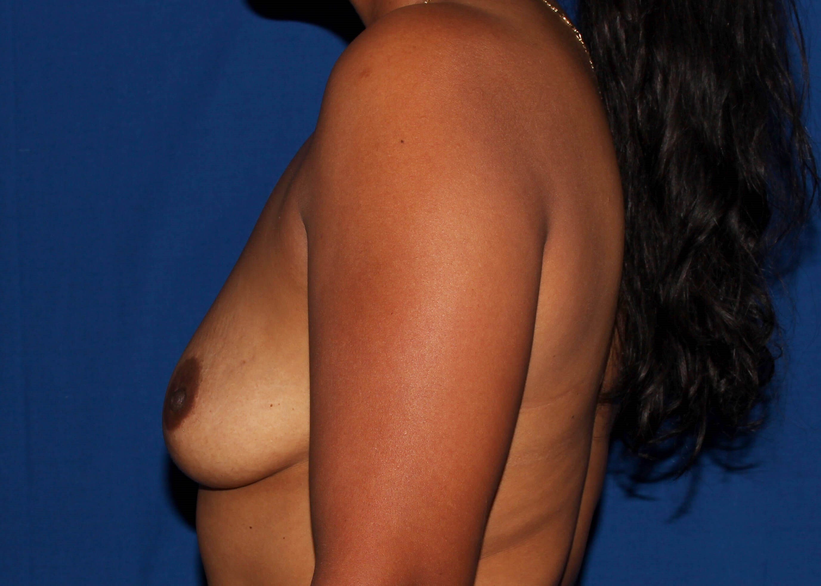Breast Augmentation Before Left View - Left View