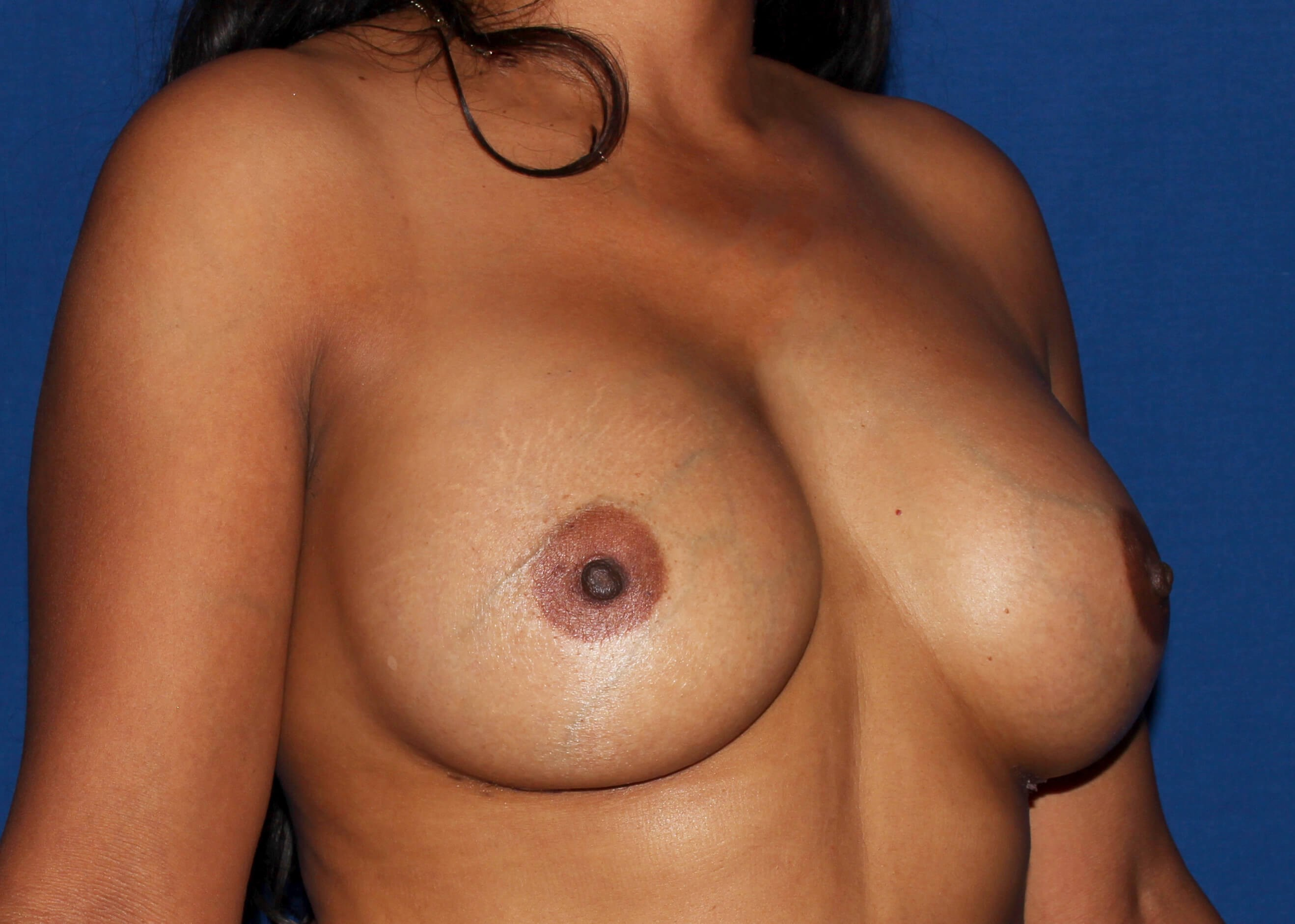 Breast Augmentation After - Scottsdale Breast Augmentation