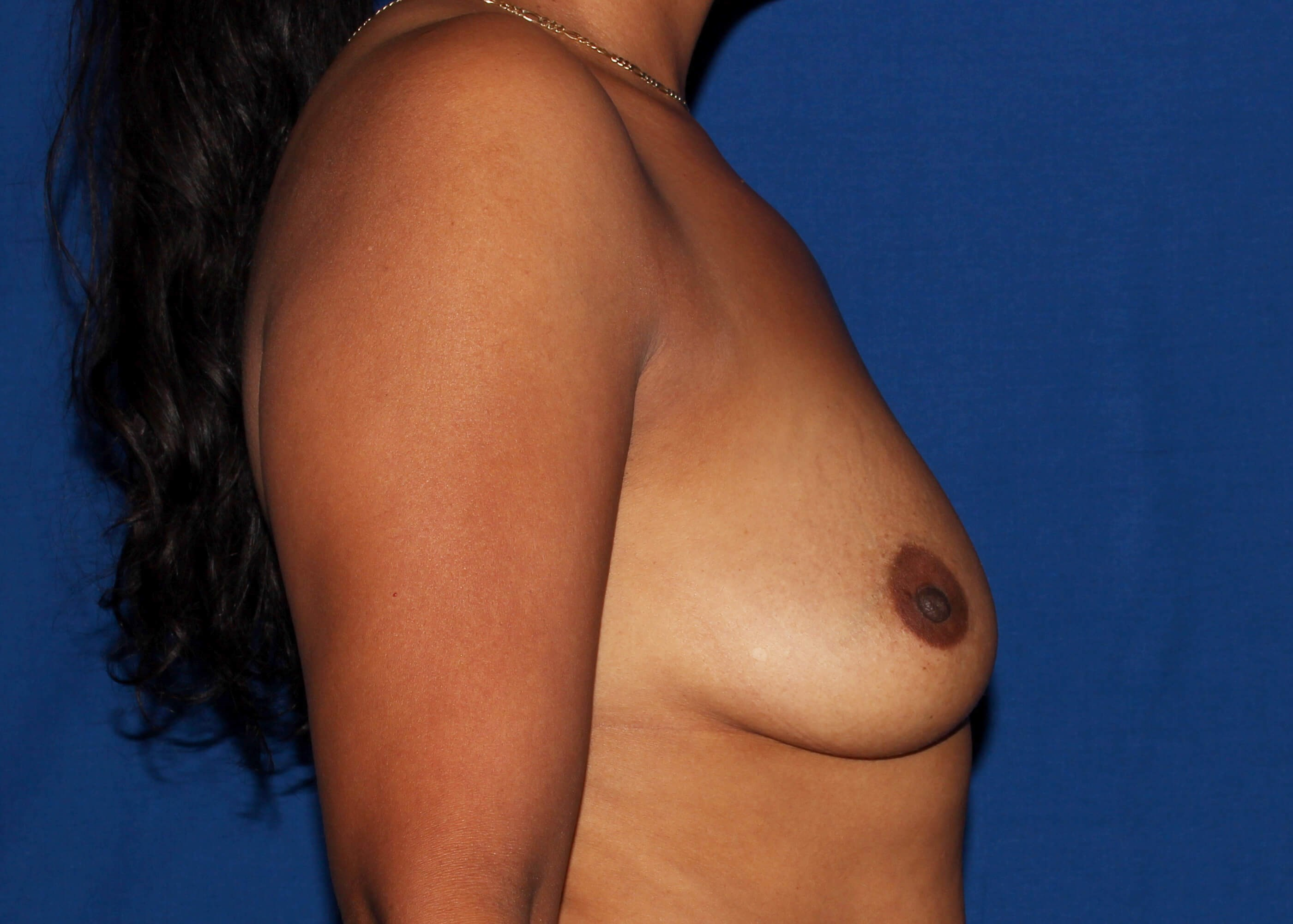 Breast Augmentation Before Right View - Right View