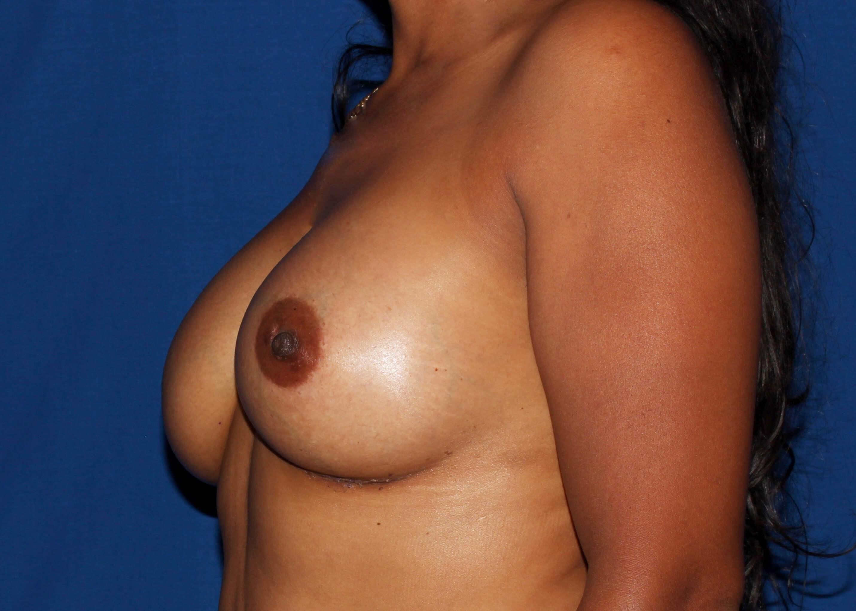 Breast Augmentation After Left Oblique View - Left Oblique View