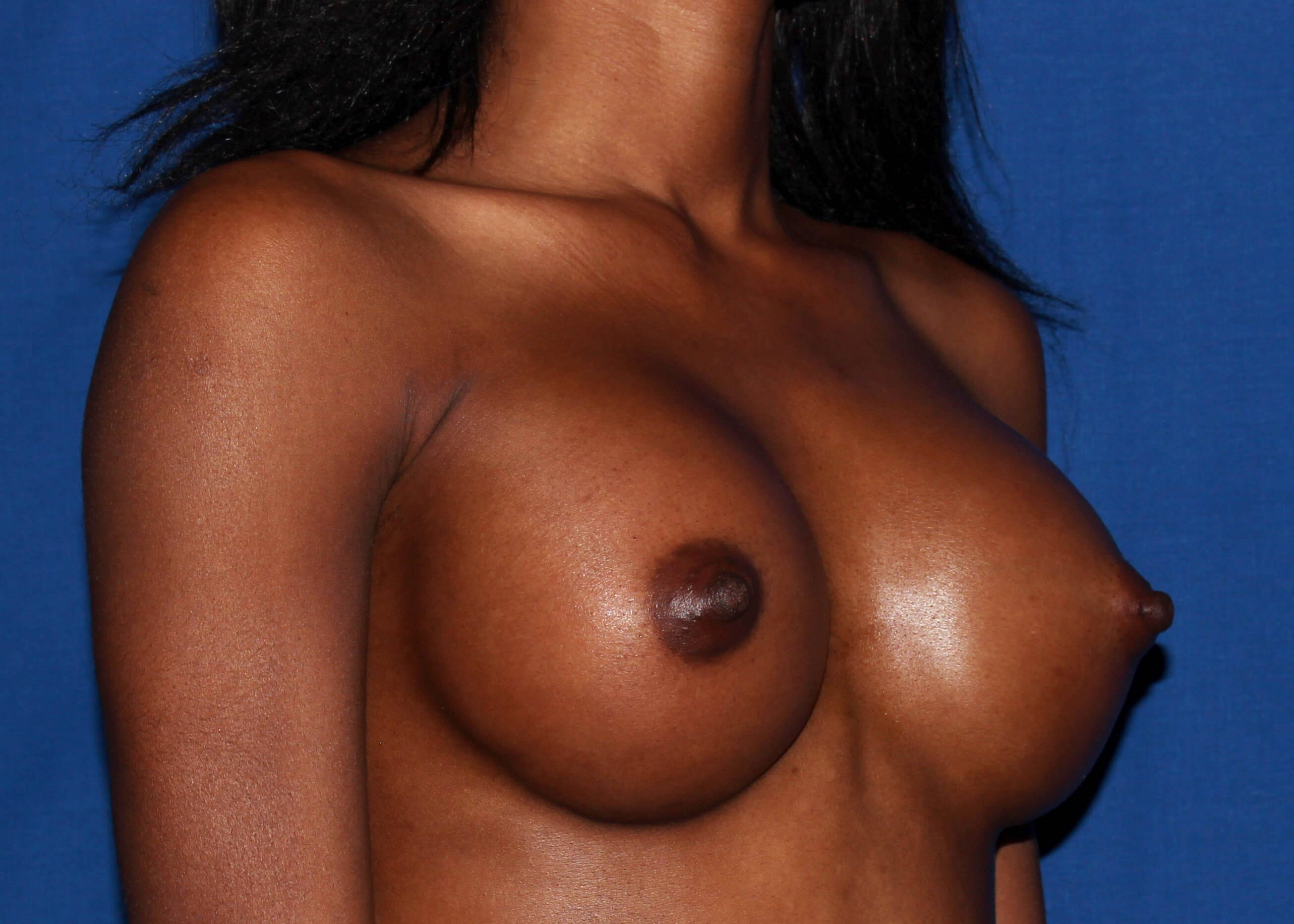 Breast Augmentation After Right Oblique View - Right Oblique View