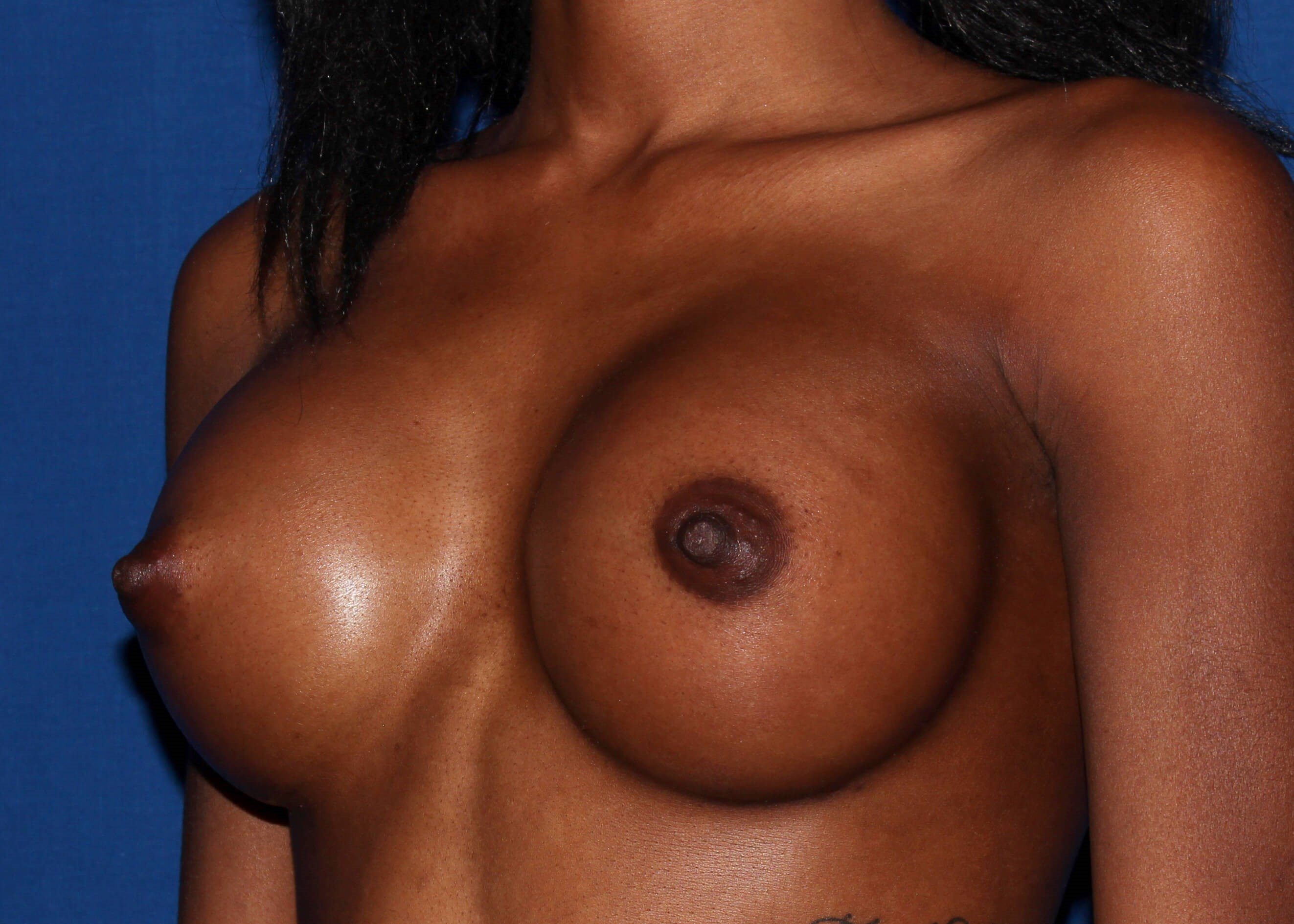 Breast Augmentation After Left Oblique View - Left Oblique View