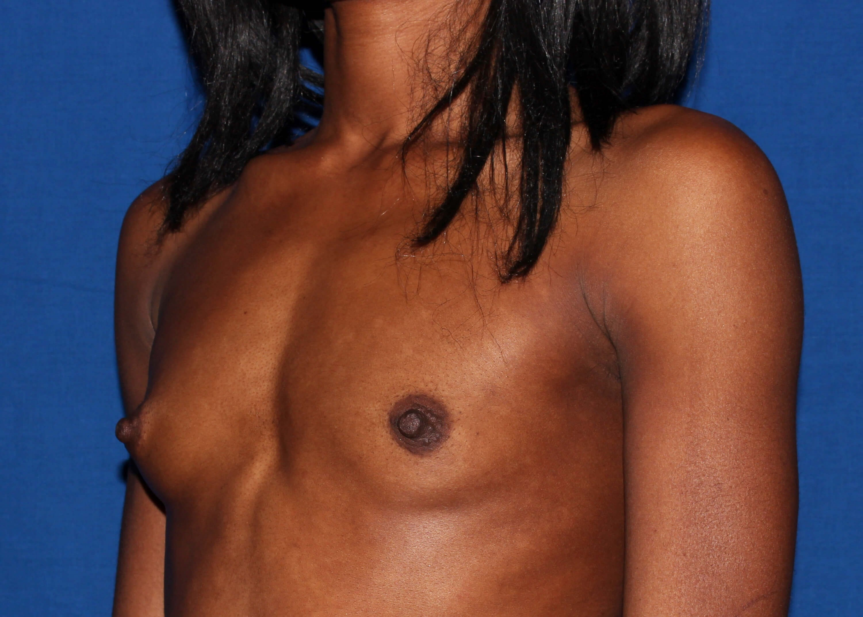 Breast Augmentation Before Left Oblique View - Left Oblique View