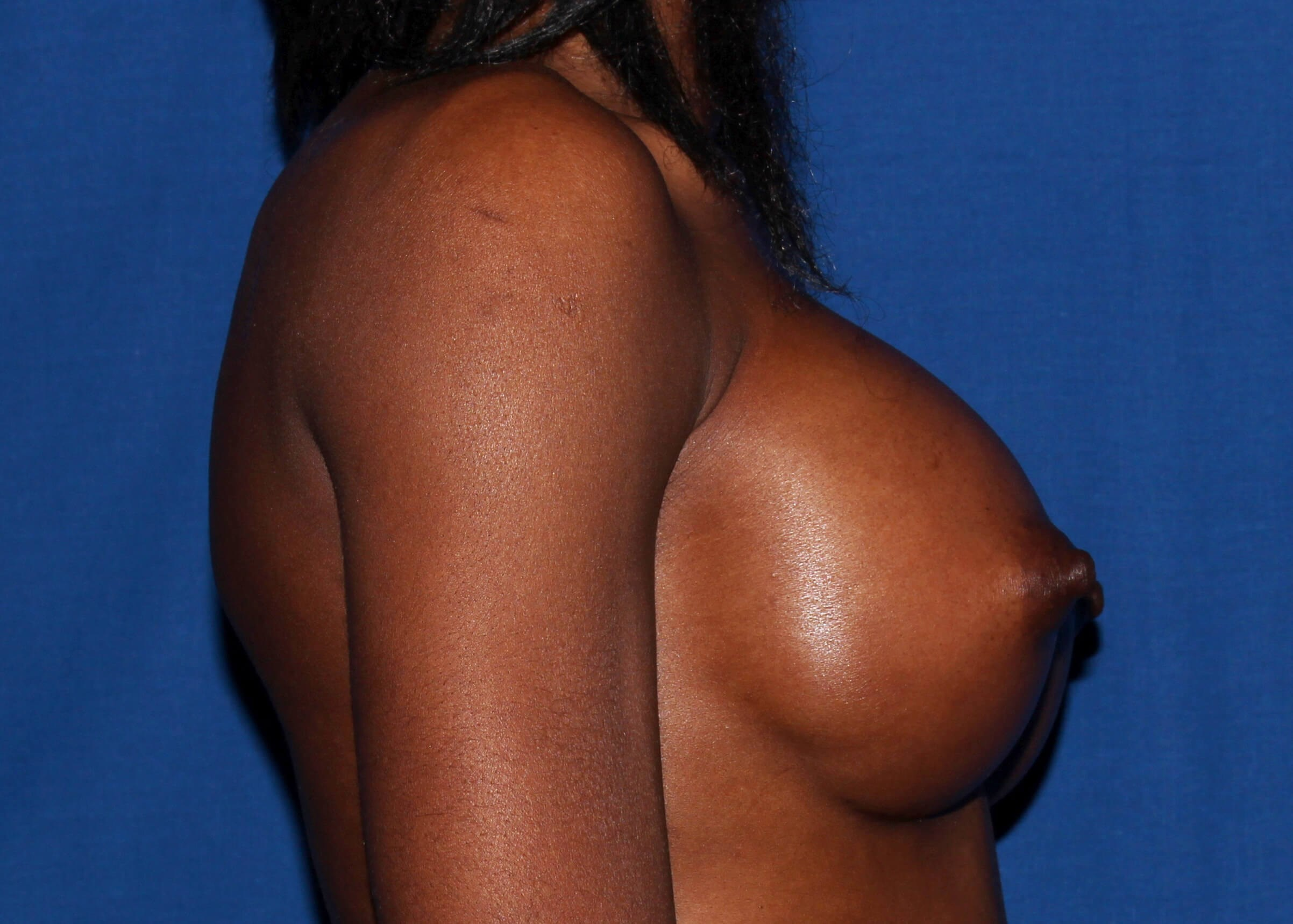 Breast Augmentation After Right View - Right View