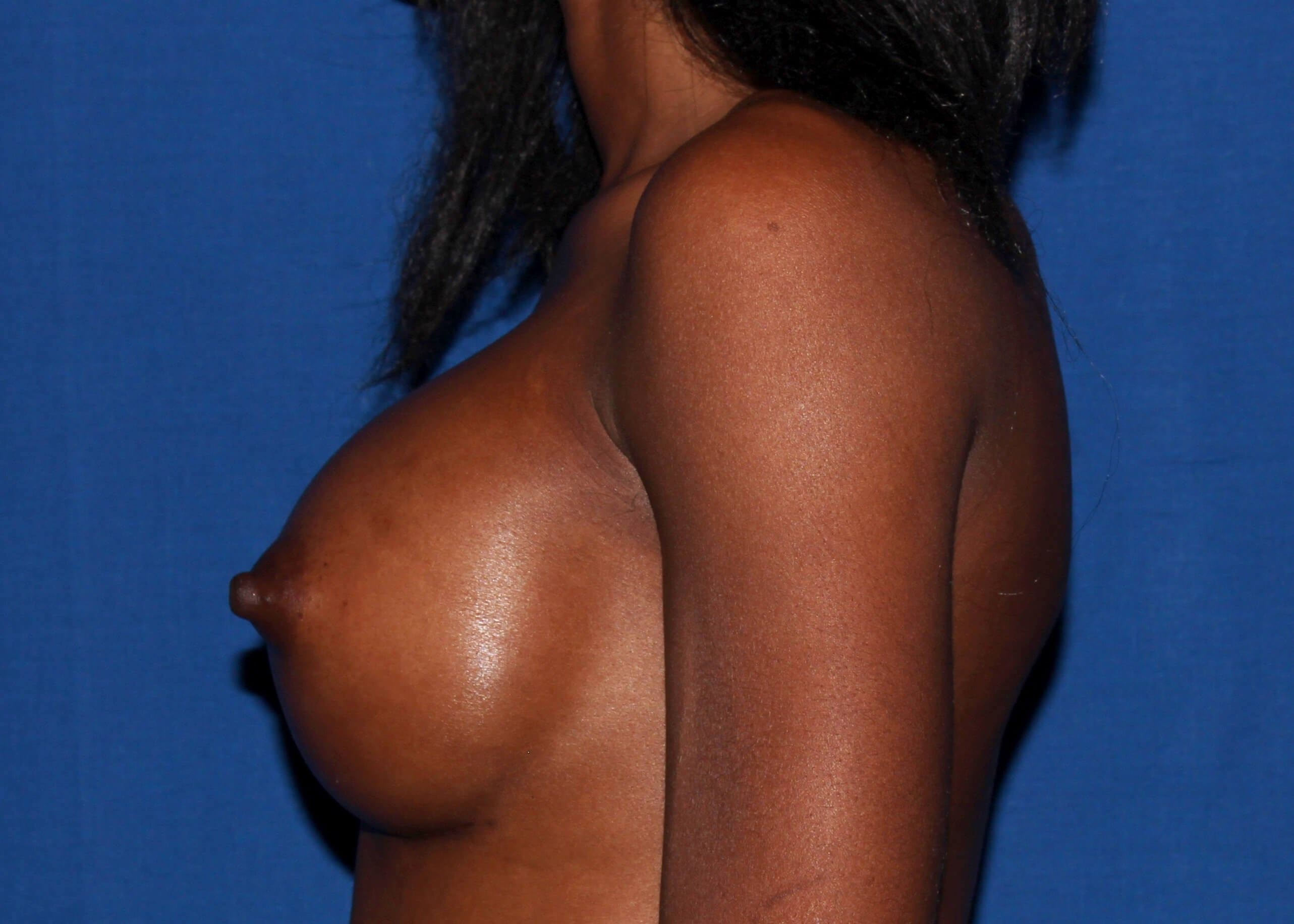 Breast Augmentation After Left View - Left View