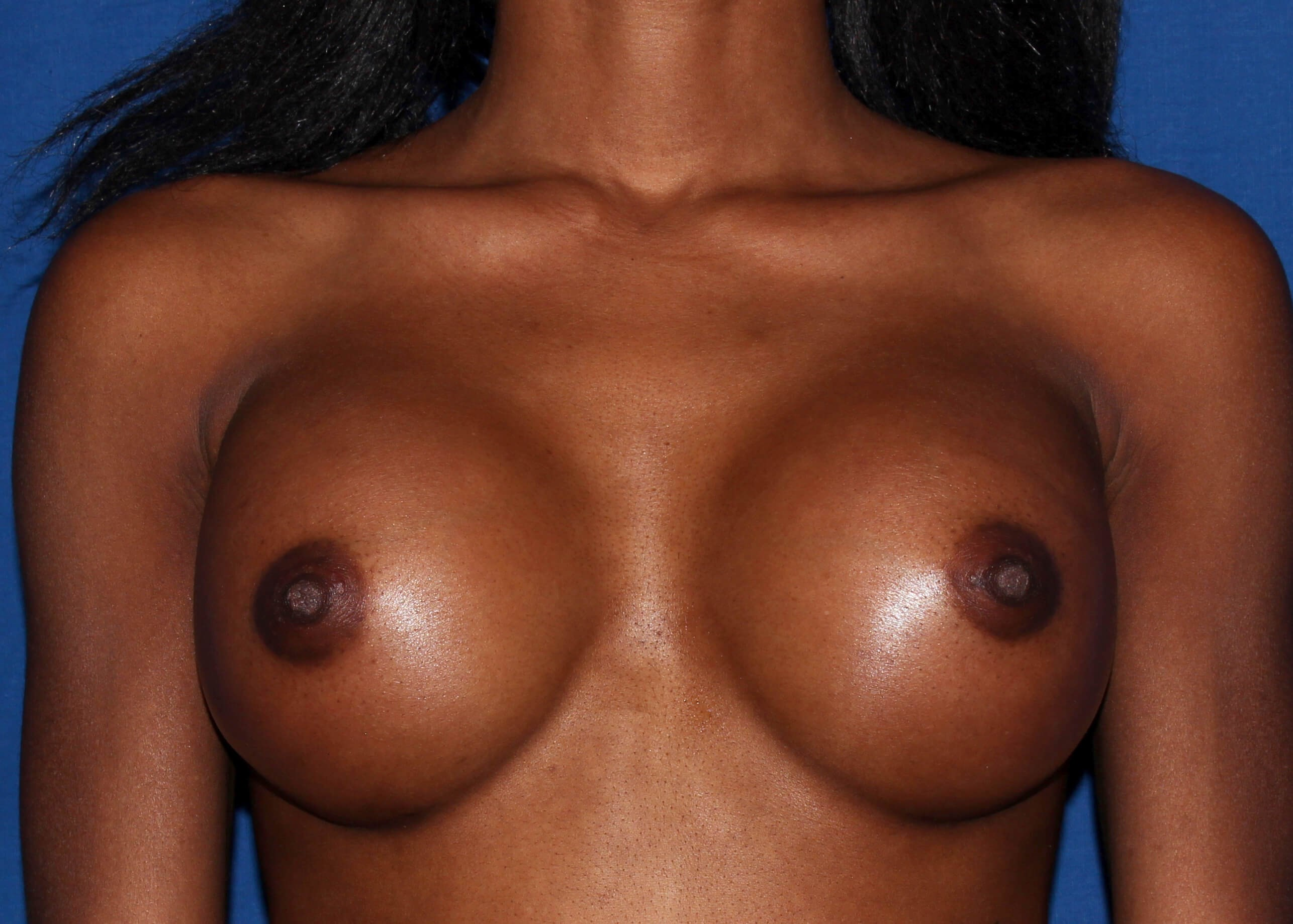 Breast Augmentation After - Scottsdale Breast Augmentation