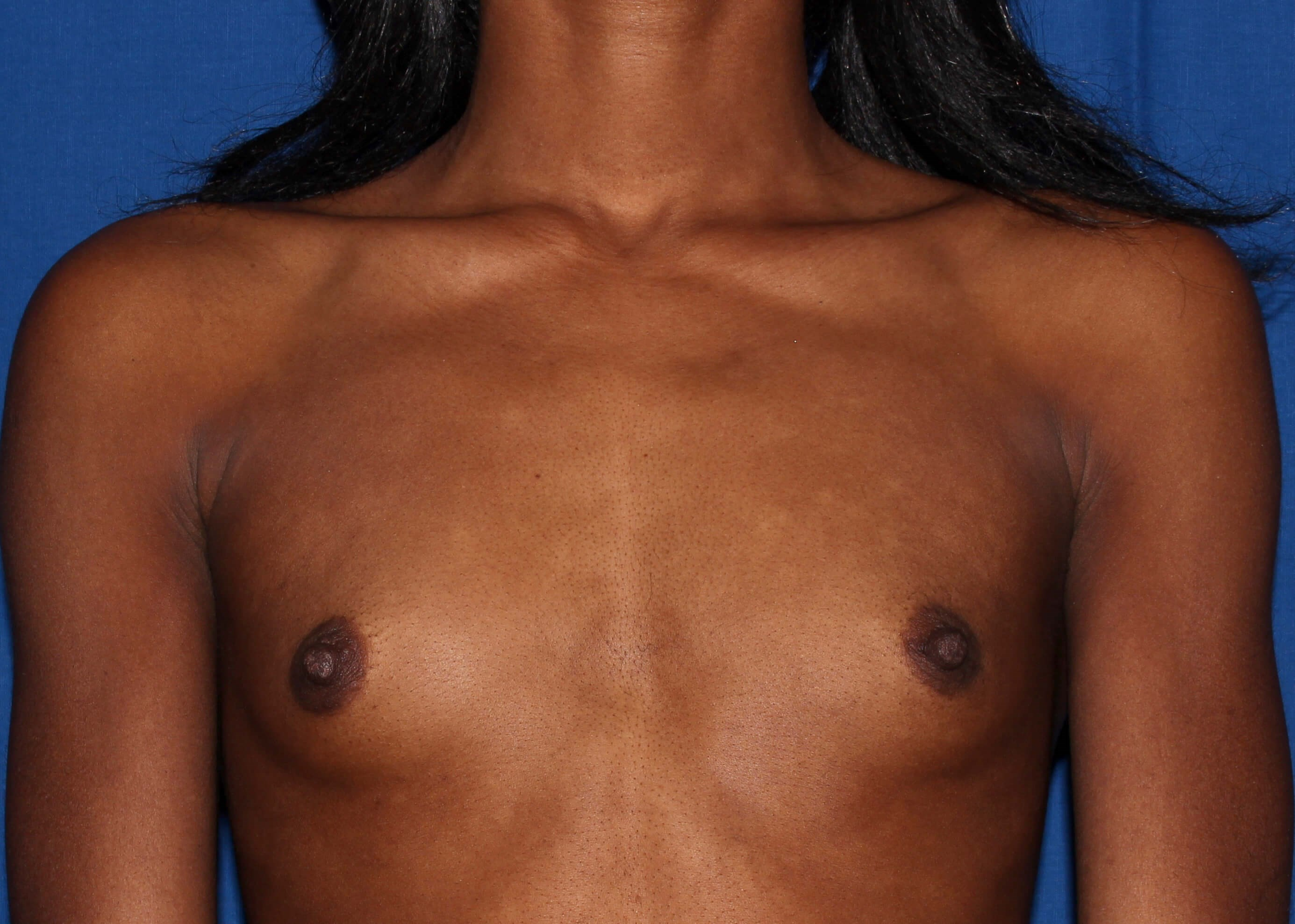 Breast Augmentation Before - Scottsdale Breast Augmentation