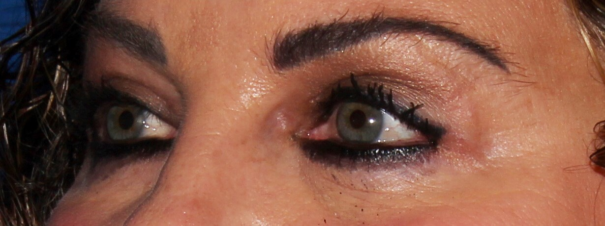 Blepharoplasty after - Left Oblique View